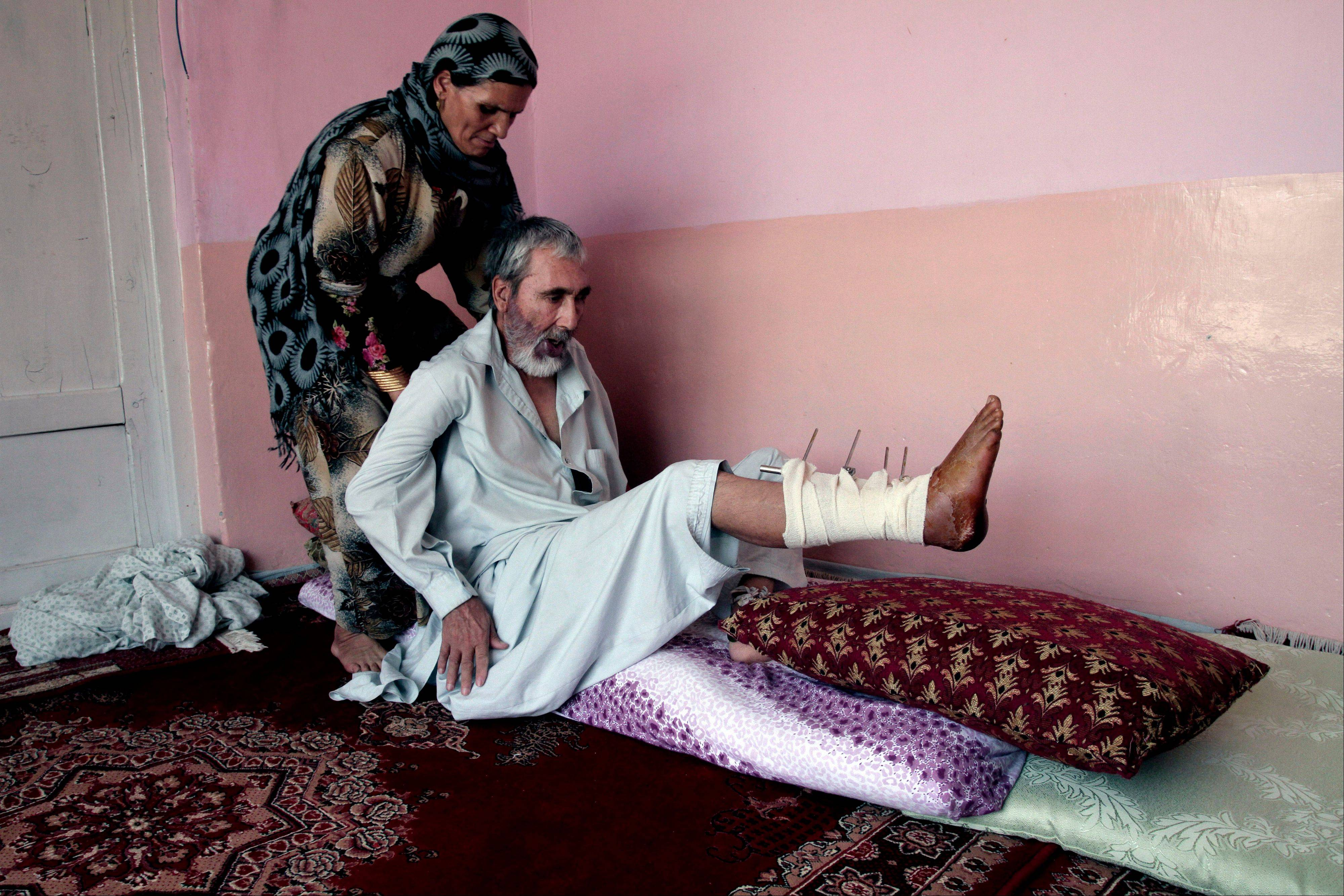 Abdul Jamil, 55, a suicide attack victim who suffers from injuries on his right leg and lost his left eye, is helped by his wife at his home, in Kabul, Afghanistan, Wednesday, July 31, 2013. The U.N. mission in Afghanistan says the number of civilian casualties has spiked in the first half of this year as insurgents use the NATO drawdown to try to retake lost territory.