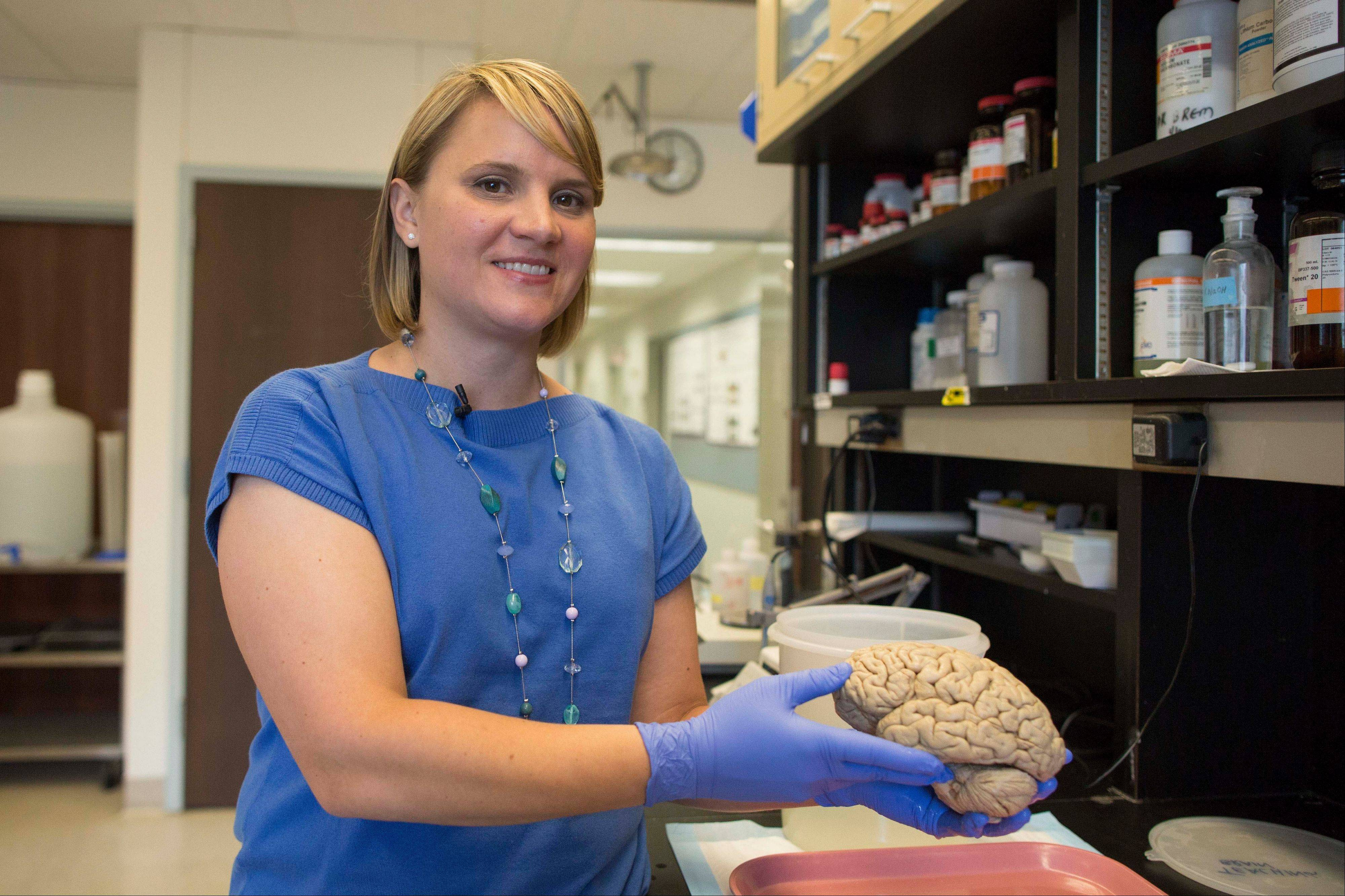 "Emily Rogalski, a neuroscientist at Northwestern University's cognitive neurology and Alzheimer's disease center in Chicago, holds a human brain in the center's laboratory. Rogalski is the study leader in the research of a rare group of ""super ages."""