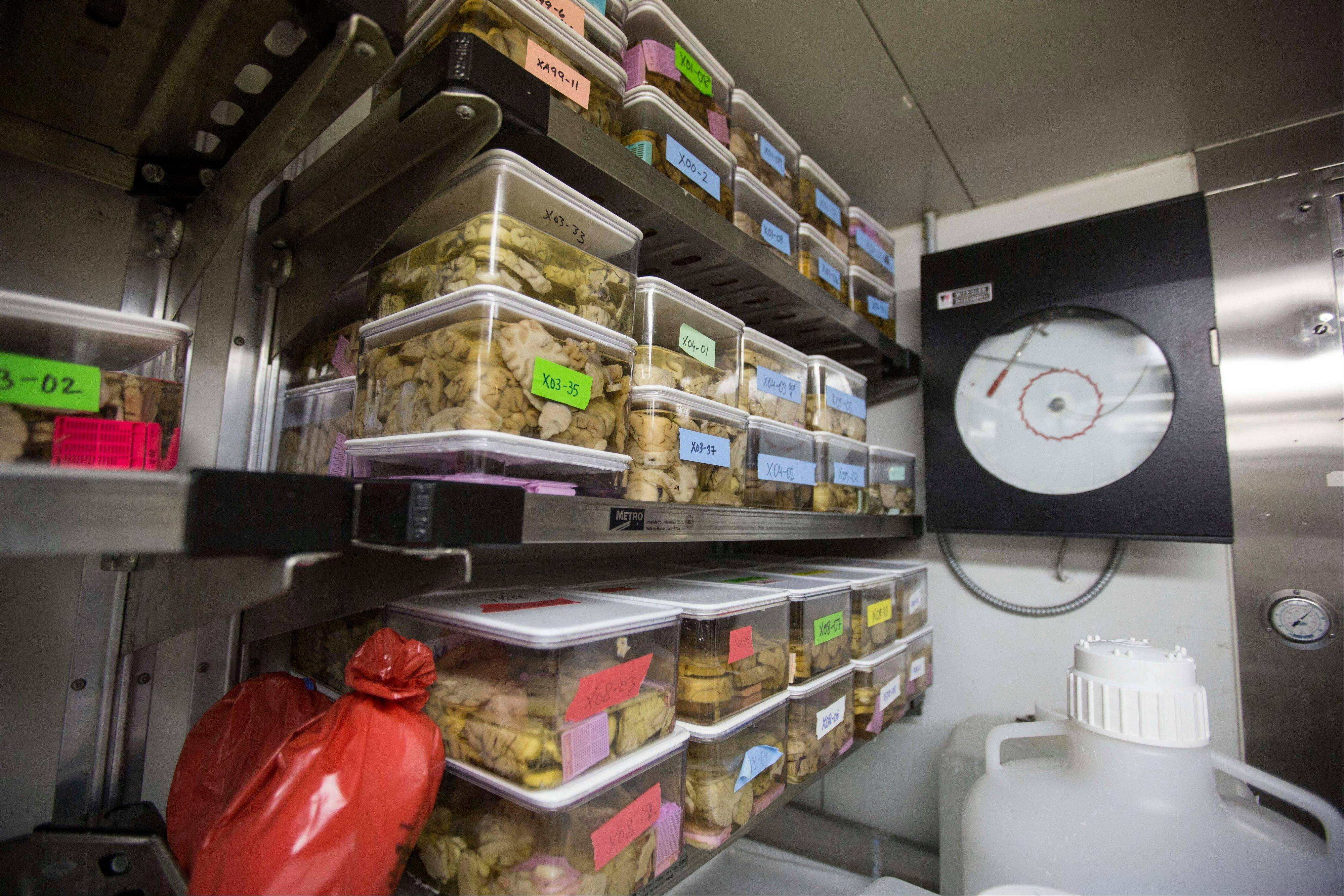 A refrigerator holds slices of human brains used for research at Northwestern University's cognitive neurology and Alzheimer's disease center in Chicago.