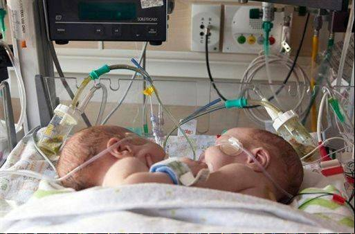Conjoined boys Emmett, left and Owen Ezell were separated Saturday in Dallas after being born joined from just below the breast bone to just below the belly button on July 15. The babies shared a liver and intestines and had an about 3 inch by 5 inch area on their lower stomach that wasn't covered by skin or muscles.