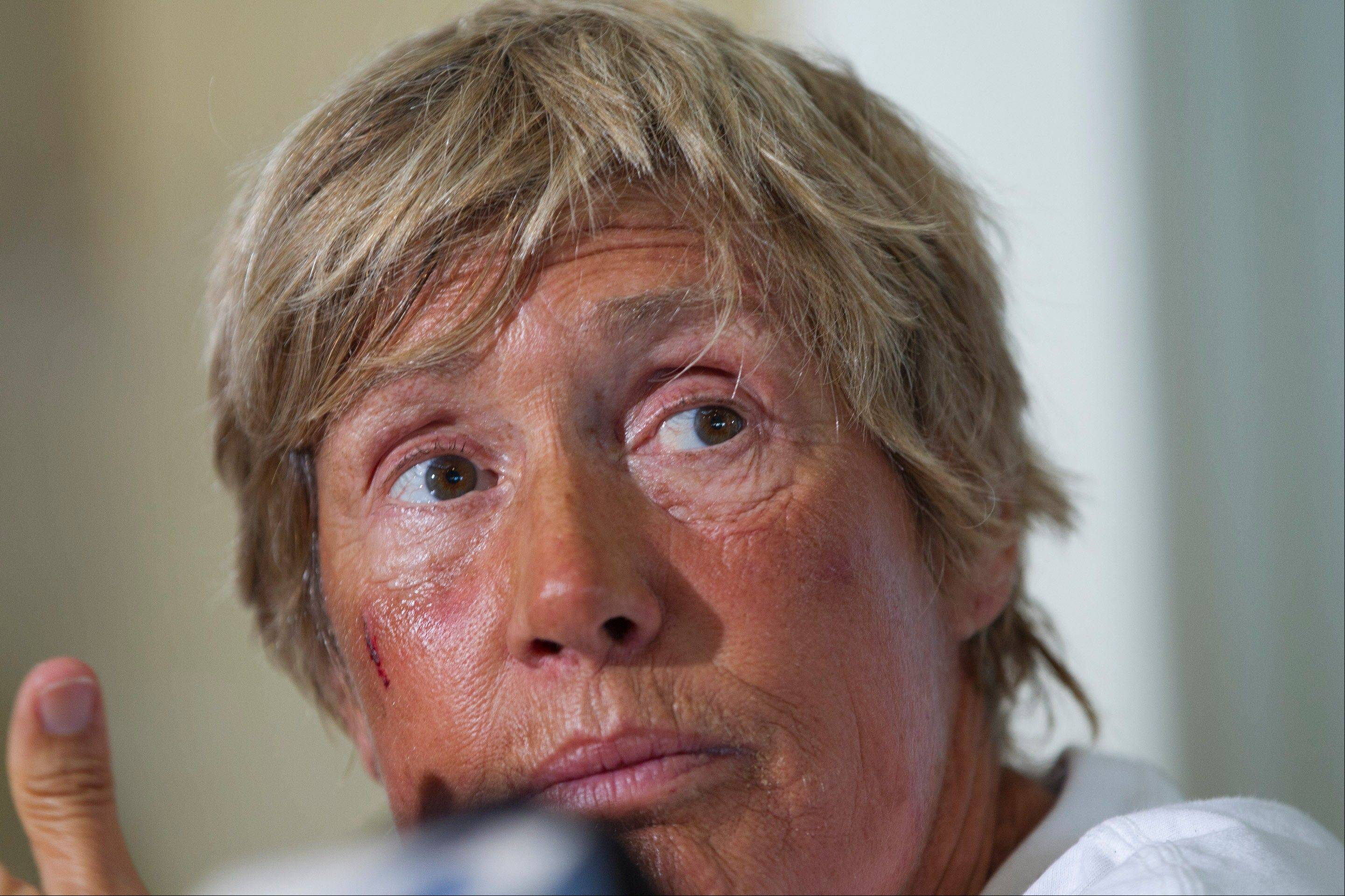 Endurance swimmer Diana Nyad talks to the media about her record-setting swim from Cuba to Florida during a press conference in Key West, Fla., Tuesday. She said the biggest challenge was swallowing large amounts of seawater, which made her vomit often.