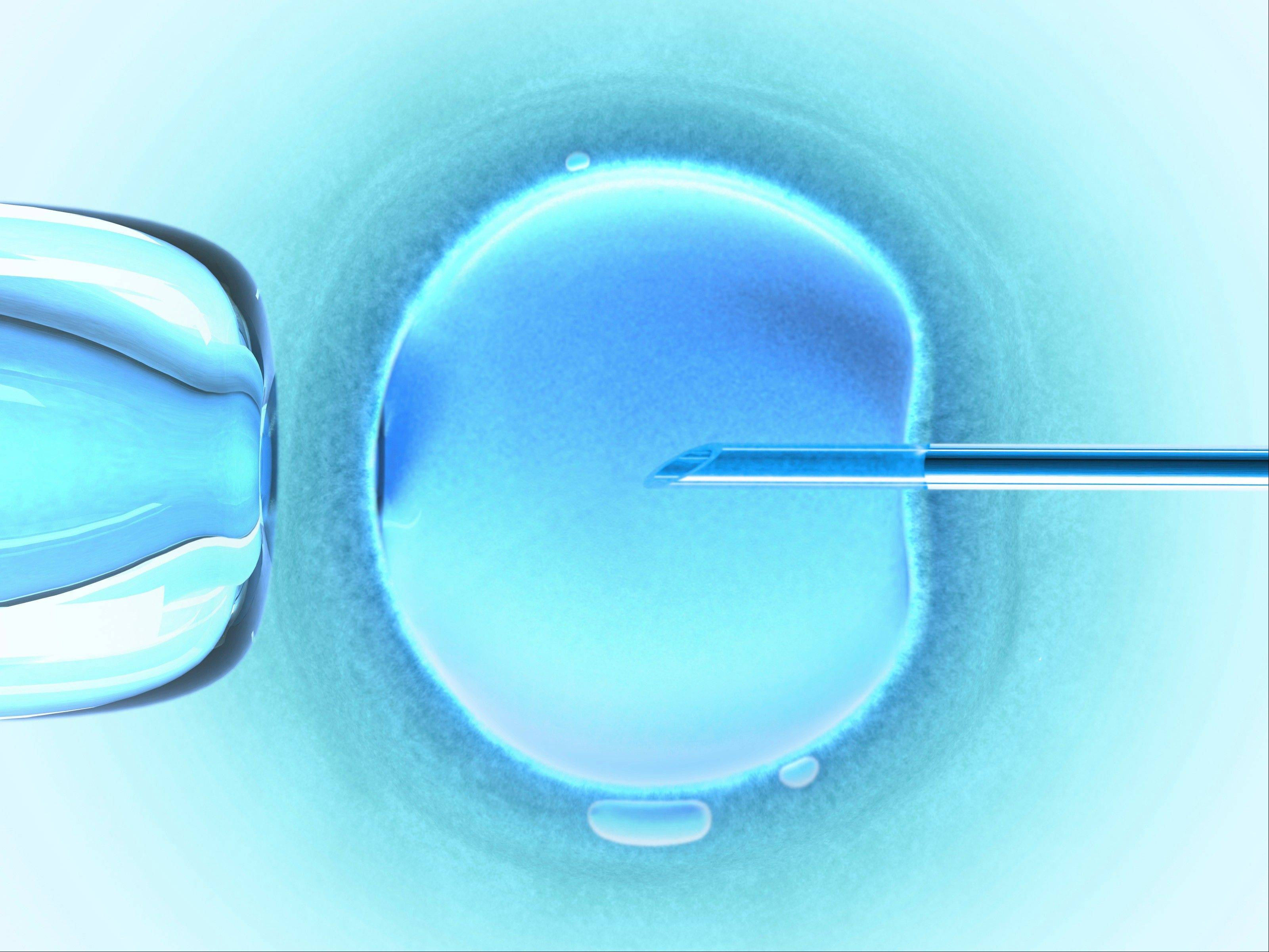 Donor eggs are often fertilized by a doctor using a microscope in a process called IVF.