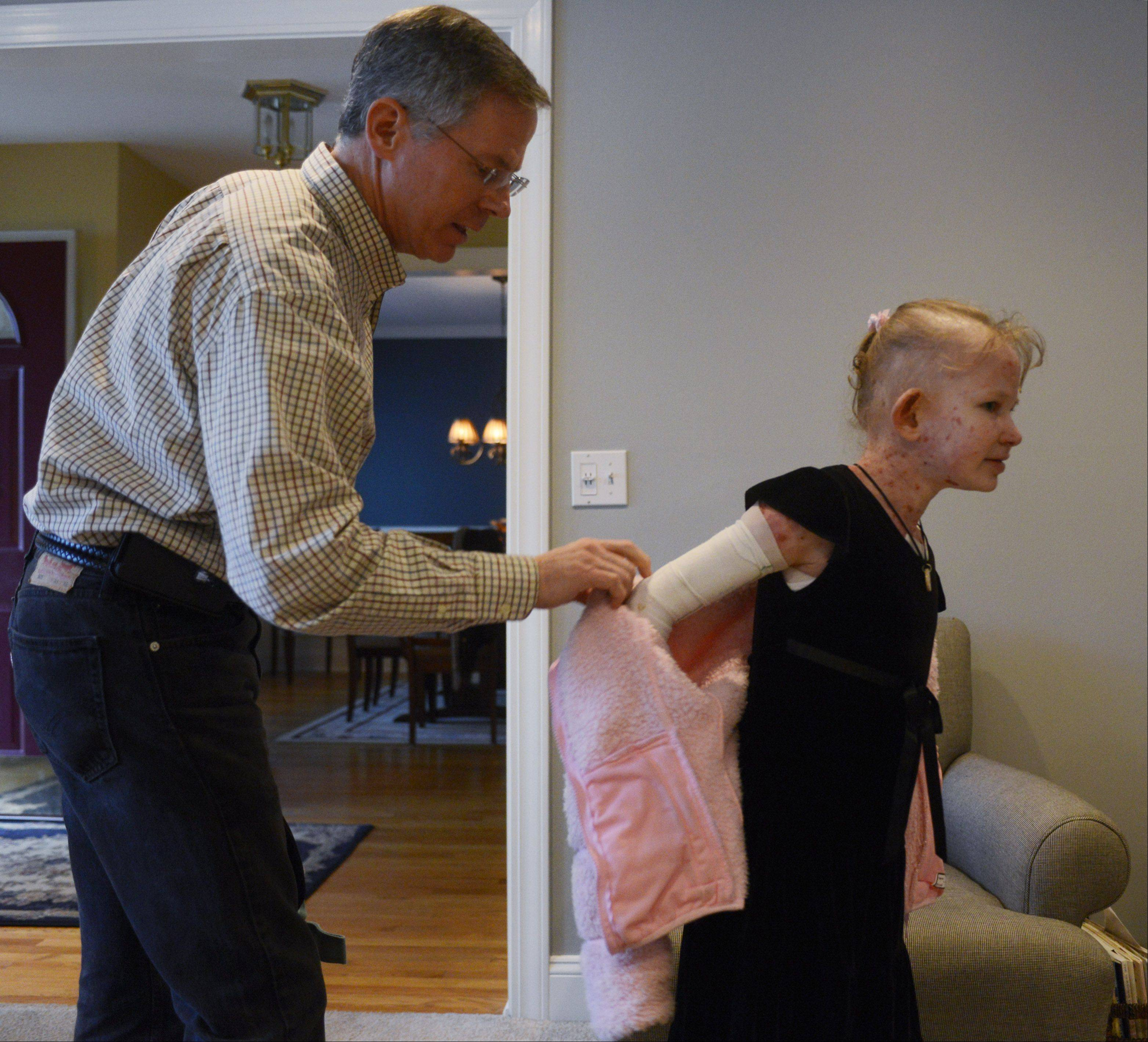 Because of a disorder that leaves her skin as delicate as a butterfly's wing, Caroline Provost, 8, of Palatine gets help from her dad, Pete Provost, as she gently removes her jacket.