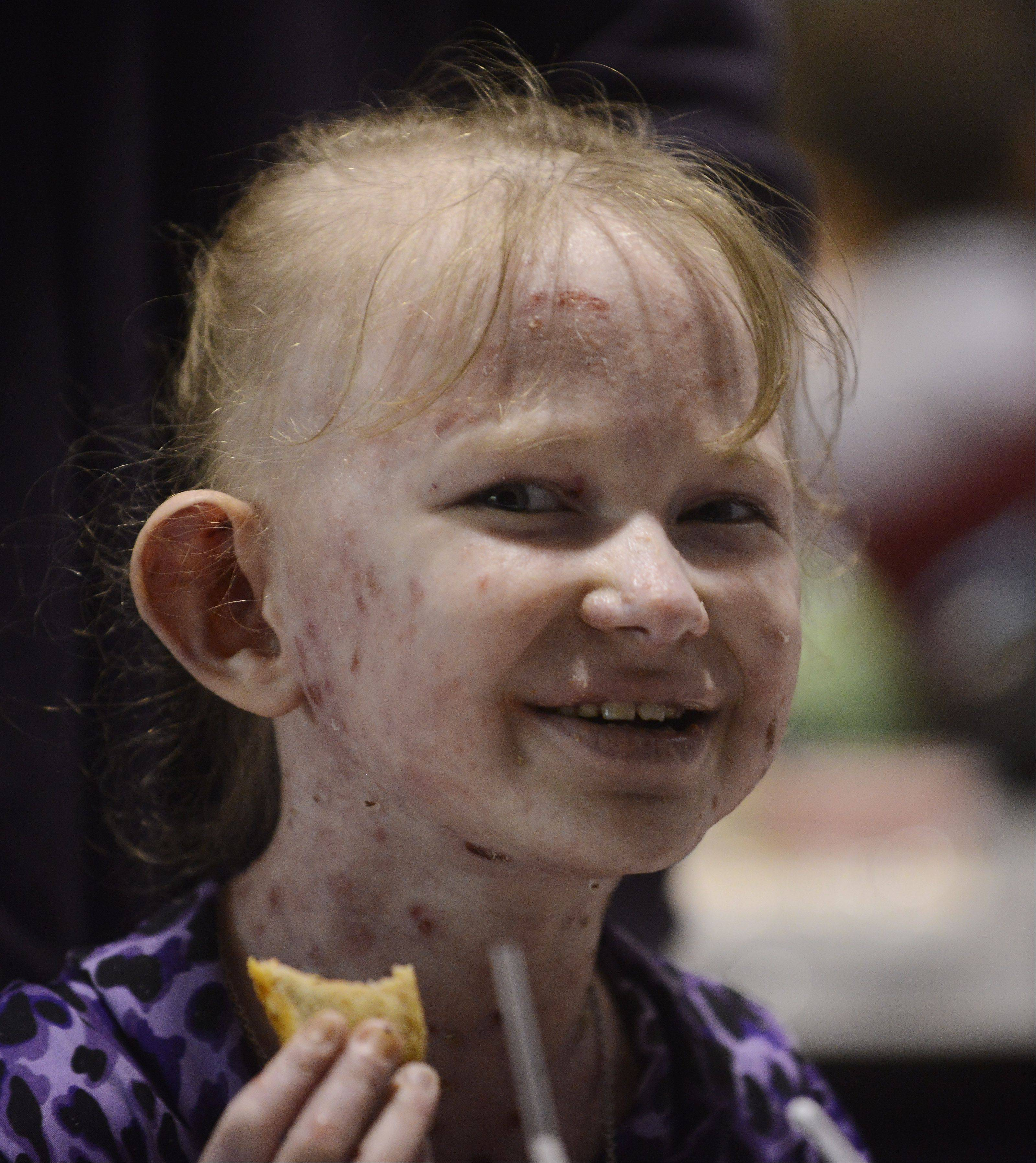 Blue eyes and a sweet smile dominate the face of Caroline Provost, who doesn't let painful blisters from a rare skin disorder keep her from enjoying lunch at Kimball Hill School in Rolling Meadows.