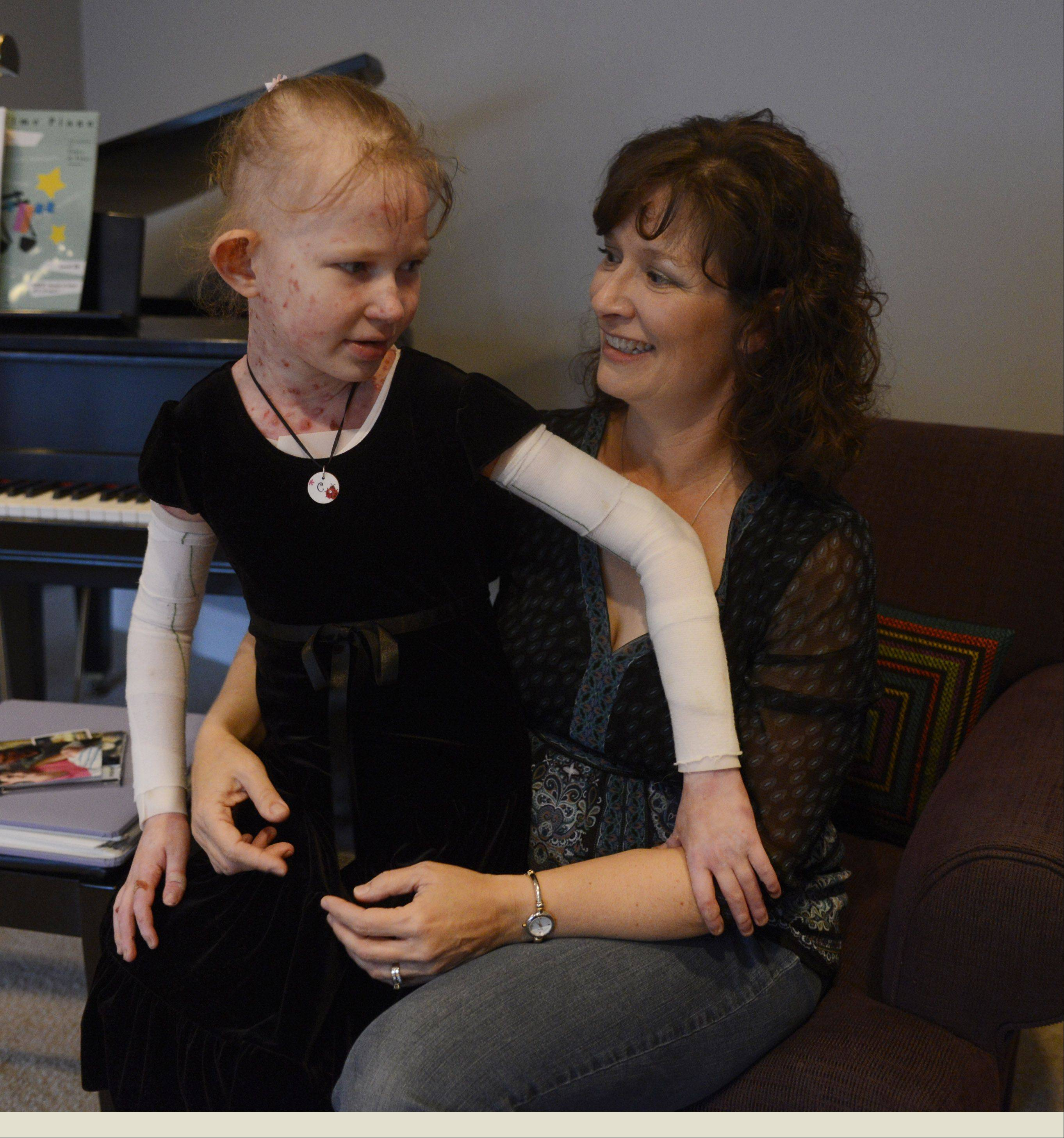 Caroline, her arms wrapped in protective bandages, shares a moment with her mom, Adrienne Provost, before a snack after school.