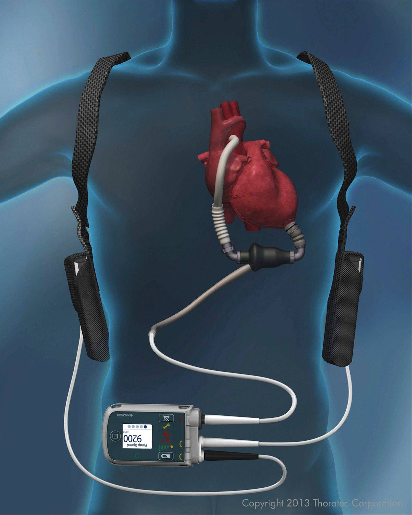 The HeartMate II was approved to keep patients healthy until transplantation. But the device theoretically could work for at least 17 years, according to the head of the company that makes it.