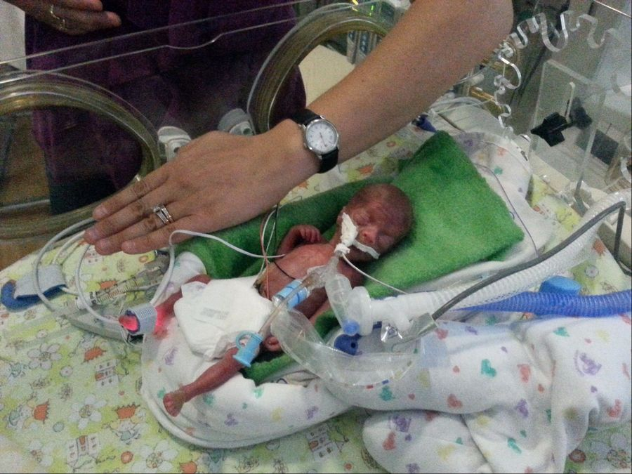 Meghan Hope Pacyna weighed a mere 15 ounces and measured only 8 inches long when she was born 17 weeks premature on July 9. The baby girl was able to go home with her parents Tuesday after a five-month stay at Advocate Good Samaritan Hospital in Downers Grove.