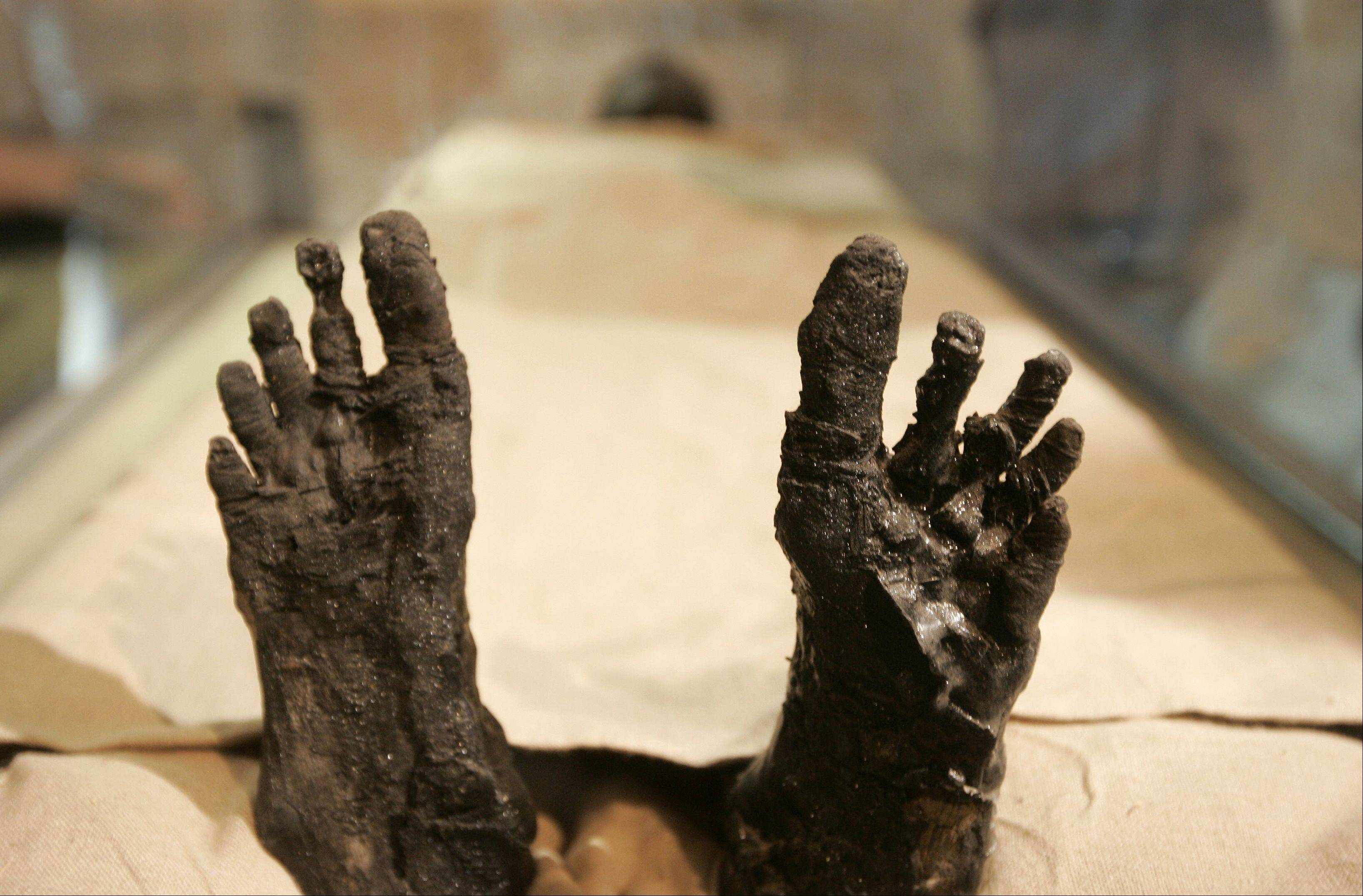 In this photo taken on Nov. 4, 2007, the feet of King Tutankhamen are seen at the moving of the linen-wrapped mummy of King Tut from his stone sarcophagus in his underground tomb in the famed Valley of the Kings in Luxor, Egypt. Egypt's famed King Tutankhamen suffered from a cleft palate and club foot, likely forcing him to walk with a cane, and died from complications from a broken leg exacerbated by malaria, according to the most extensive study ever of his mummy.