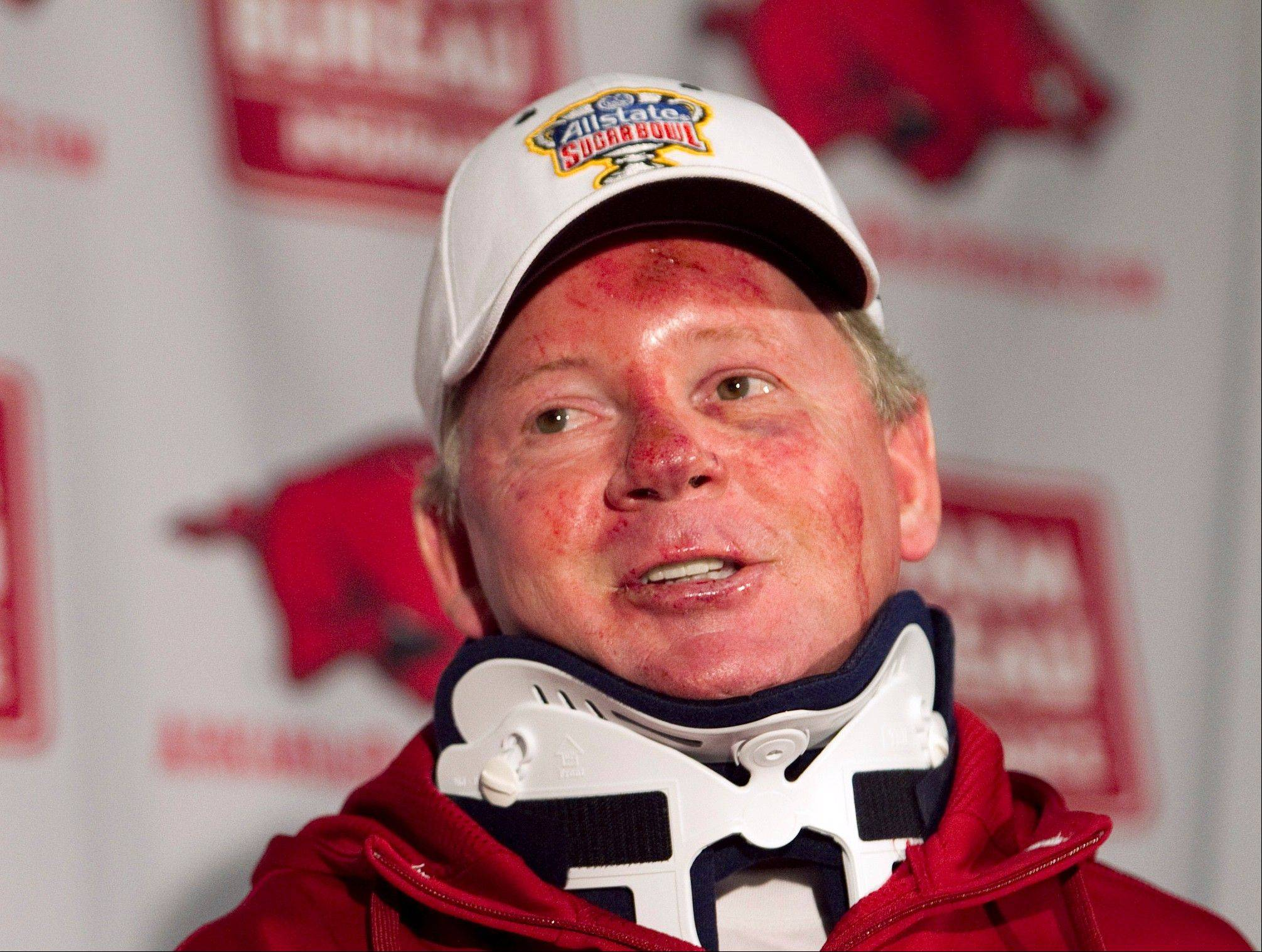 "Bobby Petrino speaks during a news conference in Fayetteville, Ark., after he was injured in a motorcycle accident. He was dismissed as Arkansas' head football coach for a ""pattern of misleading behavior"" about the accident, in which he claimed to be alone before revealing that his mistress was a passenger."
