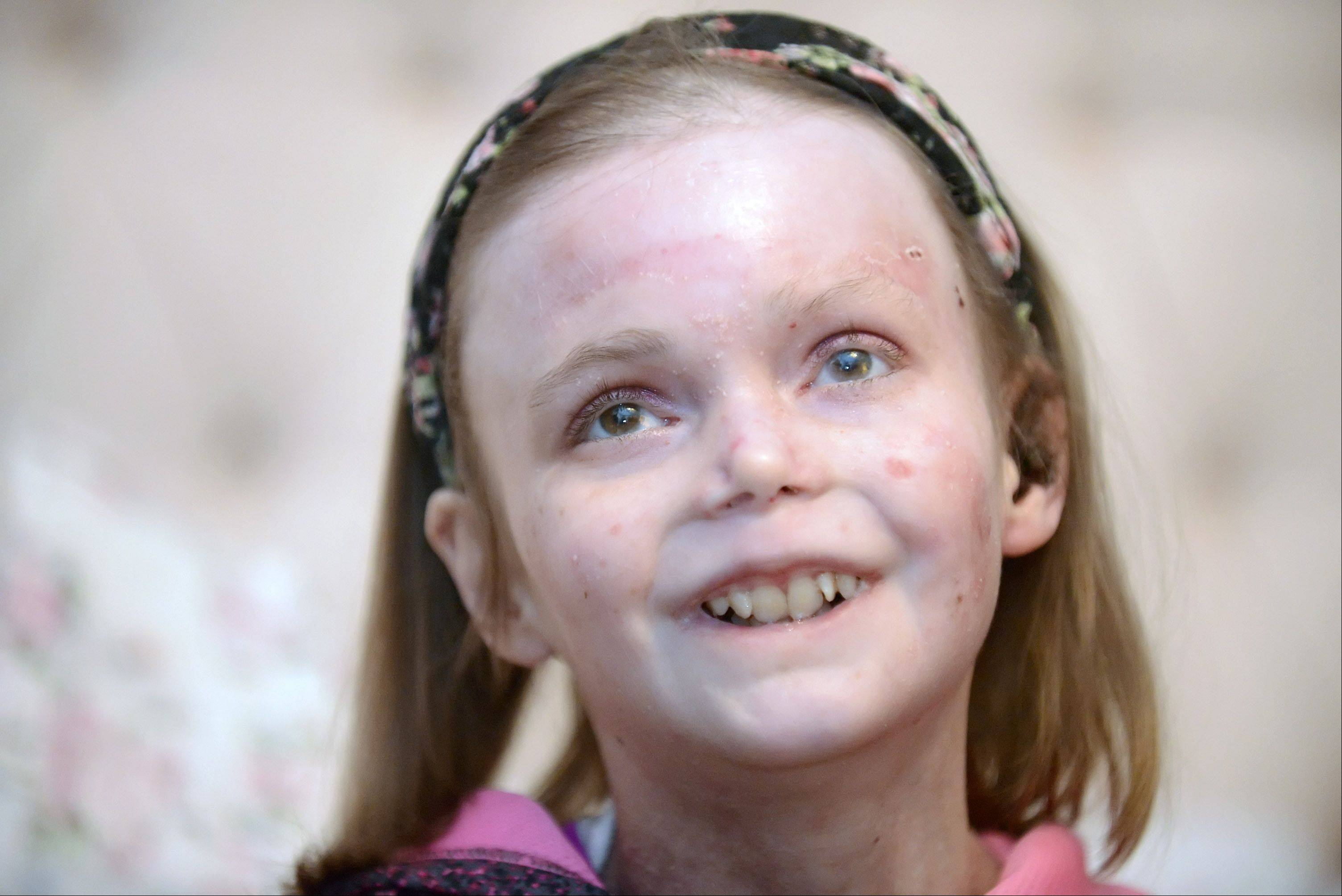 Catharine Steiner, 16, of St. Charles smiles as she absorbs her made-over bedroom on Thursday. Special Spaces Chicagoland, a nonprofit organization, creates dream bedrooms for children with life-threatening medical conditions. Catharine has was born with recessive dystrophic epidermolysis bullosa, a rare genetic connective tissue disorder. There are many genetic and symptomatic variations of the disease, but all share the symptom of extremely fragile skin can easily blister or tear from minor friction or trauma.
