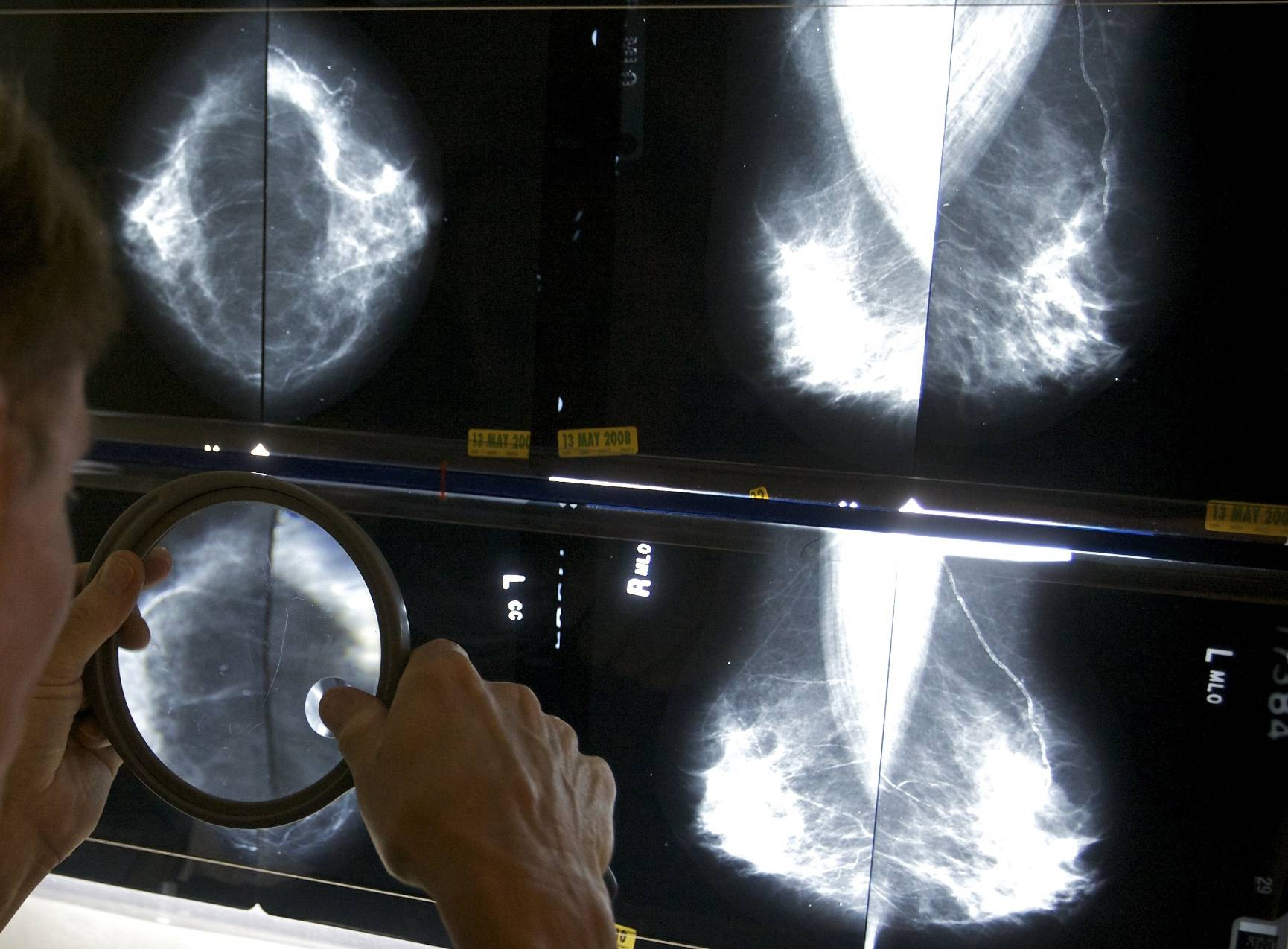 A radiologist uses a magnifying glass to check mammograms for breast cancer in Los Angeles. A Canadian study published Wednesday has revived a debate about the value of mammograms.