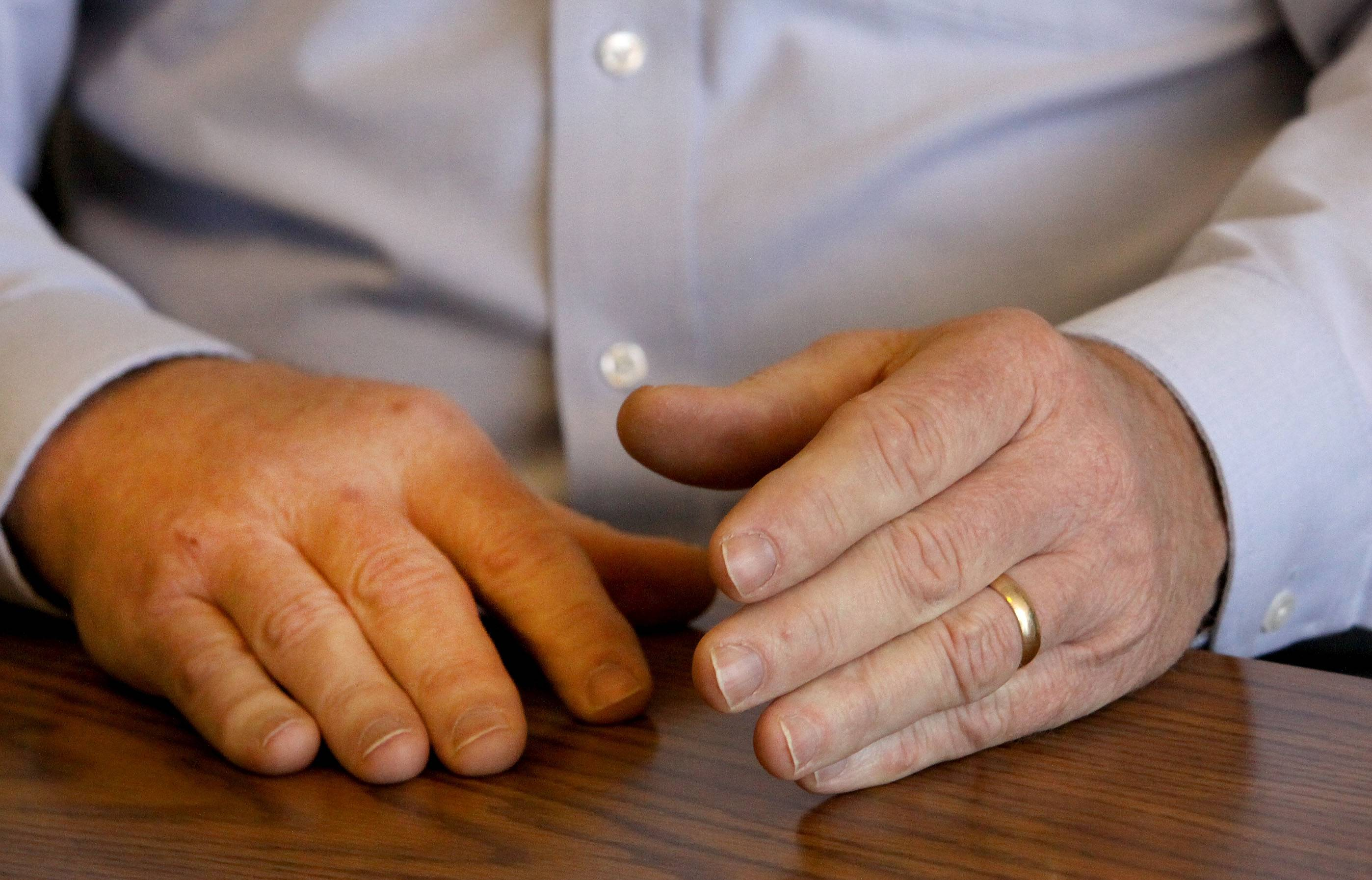 Tight wedding ring other subtle changes pointed to tumor
