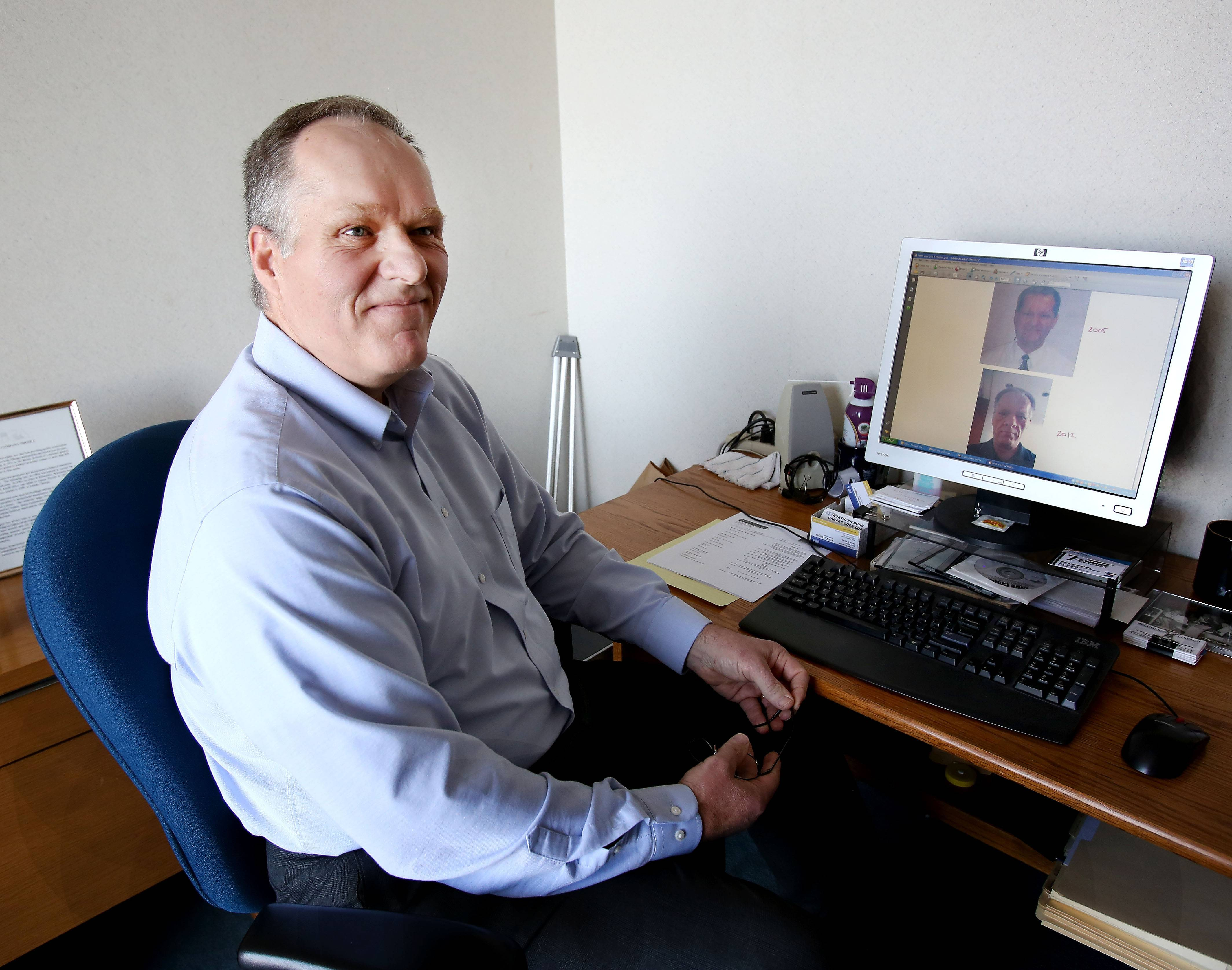 In his office as president of Itasca Construction Associates, Phil Van Duyne calls up the photographs on his computer screen that show the changes in his appearance caused by a tumor on his pituitary gland.