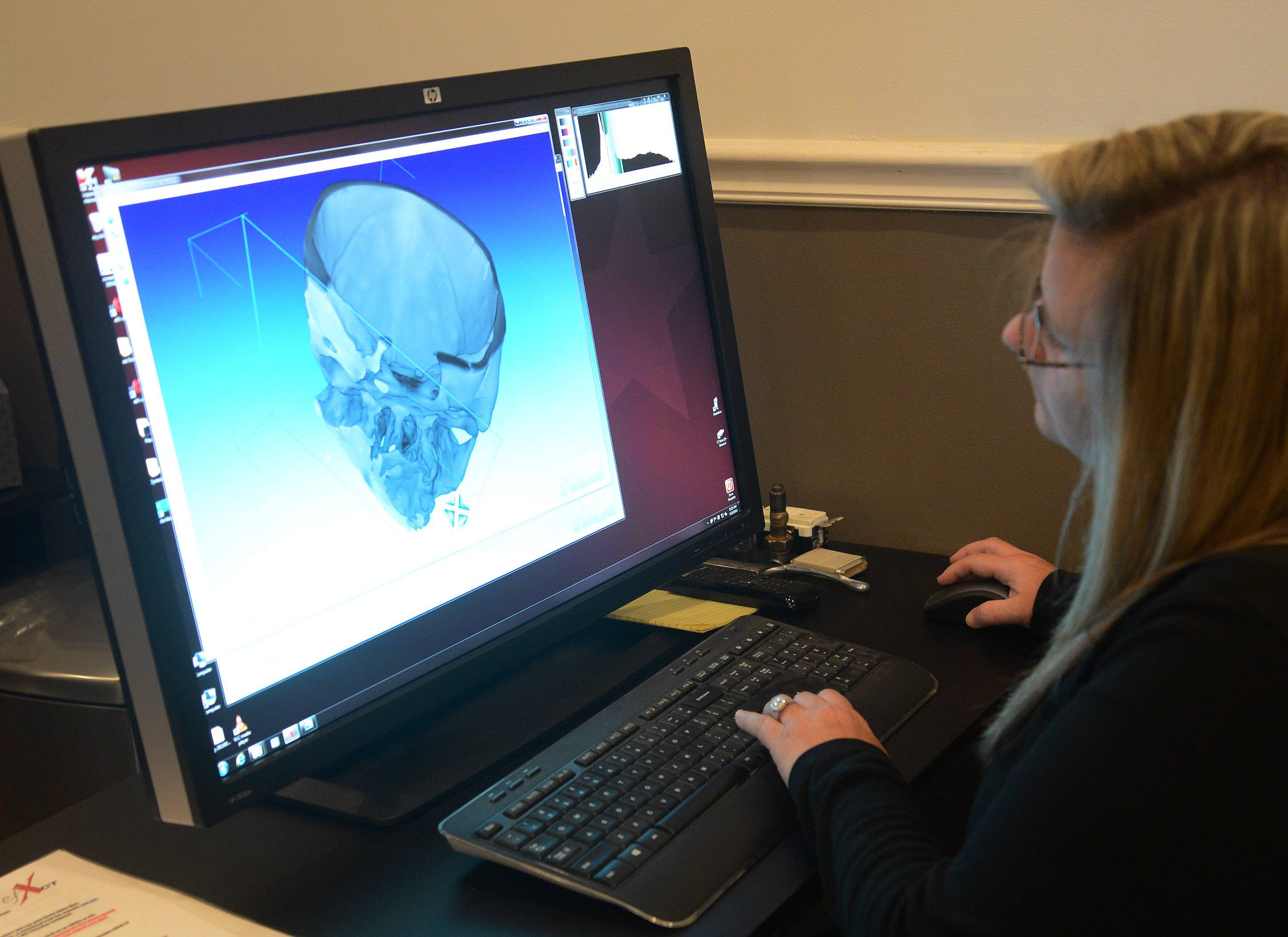 The reconstructed skull of a woman who died at the end of the Ice Age is X-rayed at Alloyweld Inspection Co. in Bensenville, as company Vice President Jennifer Anaya studies the 3-D images.
