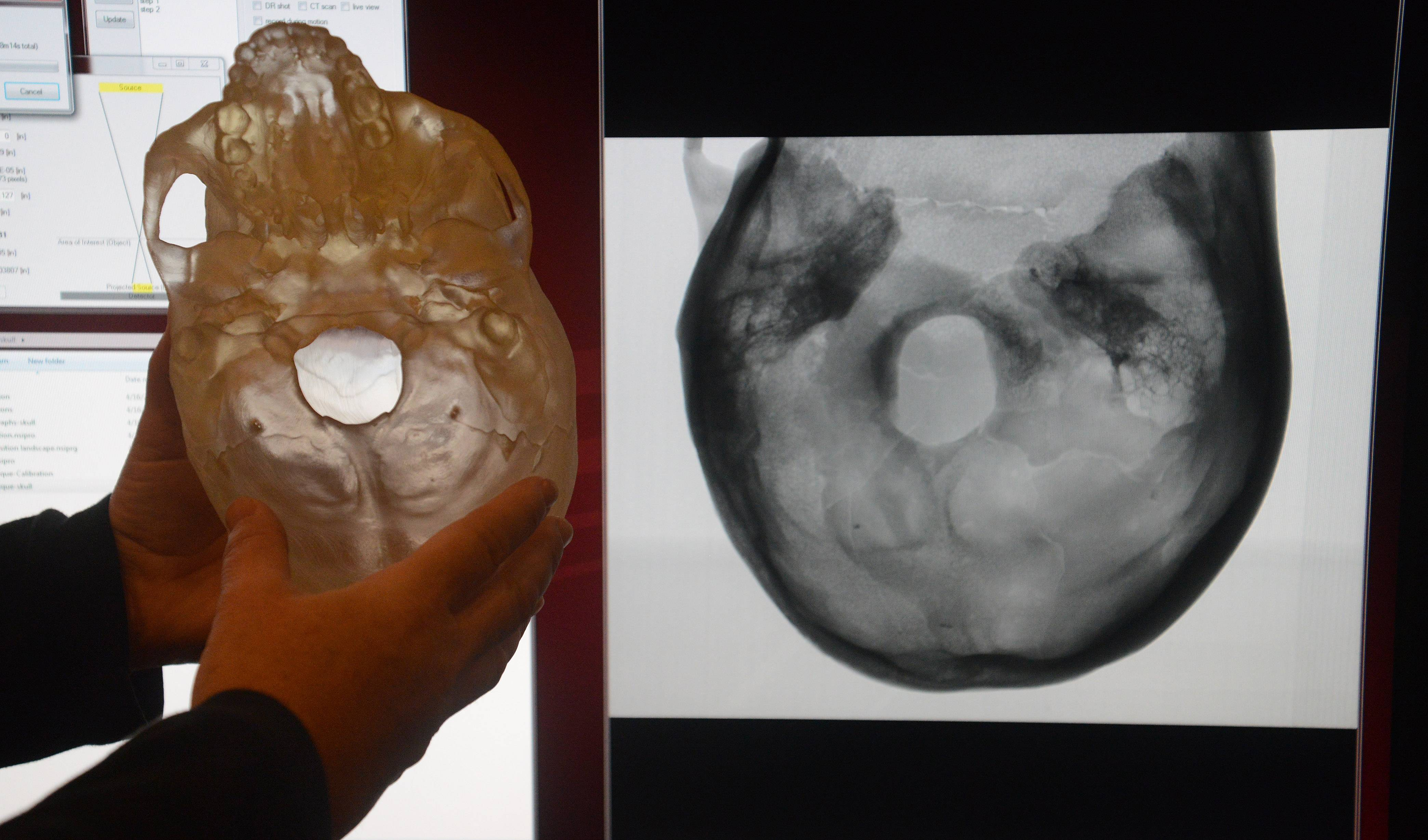 "Holding a resin model of a 12,000-year-old skull, Jennifer Anaya of Alloyweld Inspection Co. in Bensenville says the ultra-high-quality X-ray of the actual skull will give the Field Museum a more accurate depiction of how the ""Magdalenian Woman"" once looked."