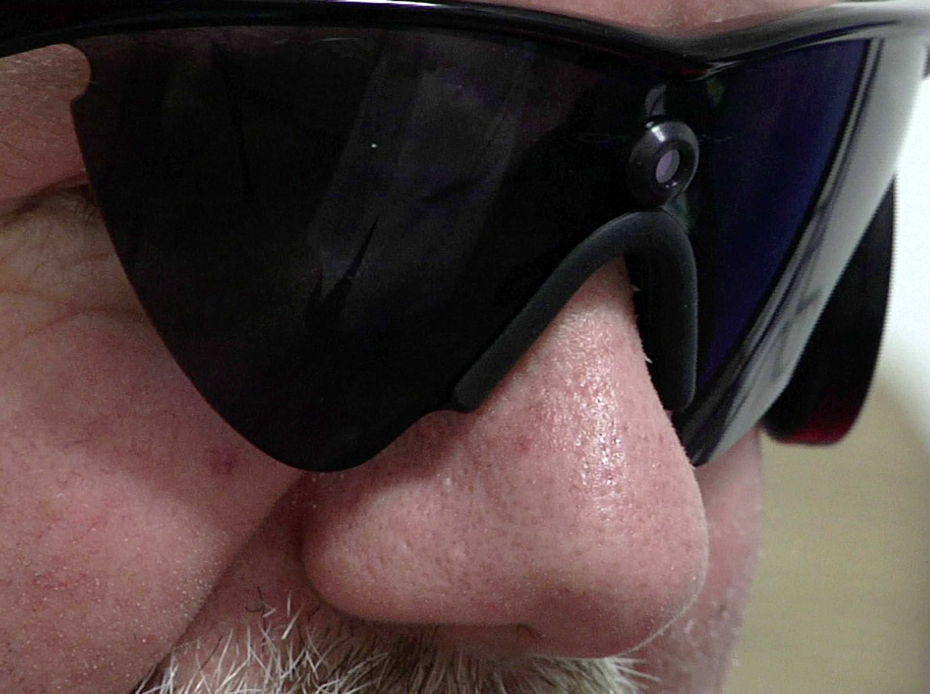 Roger Pontz wears special glasses that house a small video camera and transmitter at the University of Michigan Kellogg Eye Center in Ann Arbor, Mich. The glasses are part of a system developed by a California company that wirelessly transmits images from the camera, converted into a series of electrical pulses, to an array of electrodes on the surface of Pontz' retina.