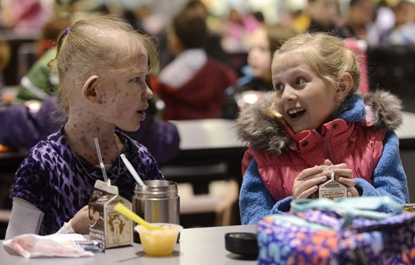 """Butterfly child"" -- Caroline Provost, left, has lunch with friend Cece Gray at Kimball Hill School in Rolling Meadows. Caroline has a rare disorder that renders her skin as delicate as a butterfly's wing."