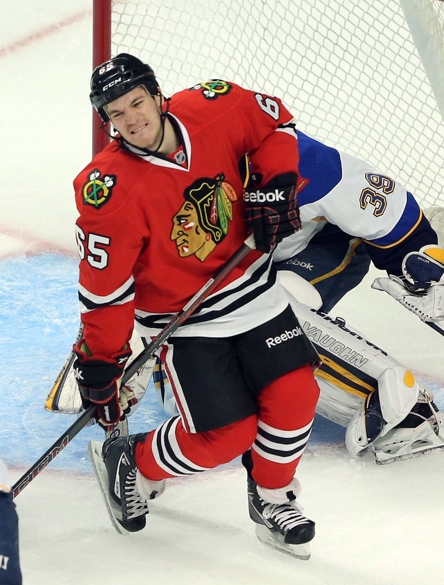 Chicago Blackhawks center Andrew Shaw may not play against the Minnesota Wild in Game 2 of the Western Conference semifinals Sunday because of a lower body injury he suffered during Friday's series opener.