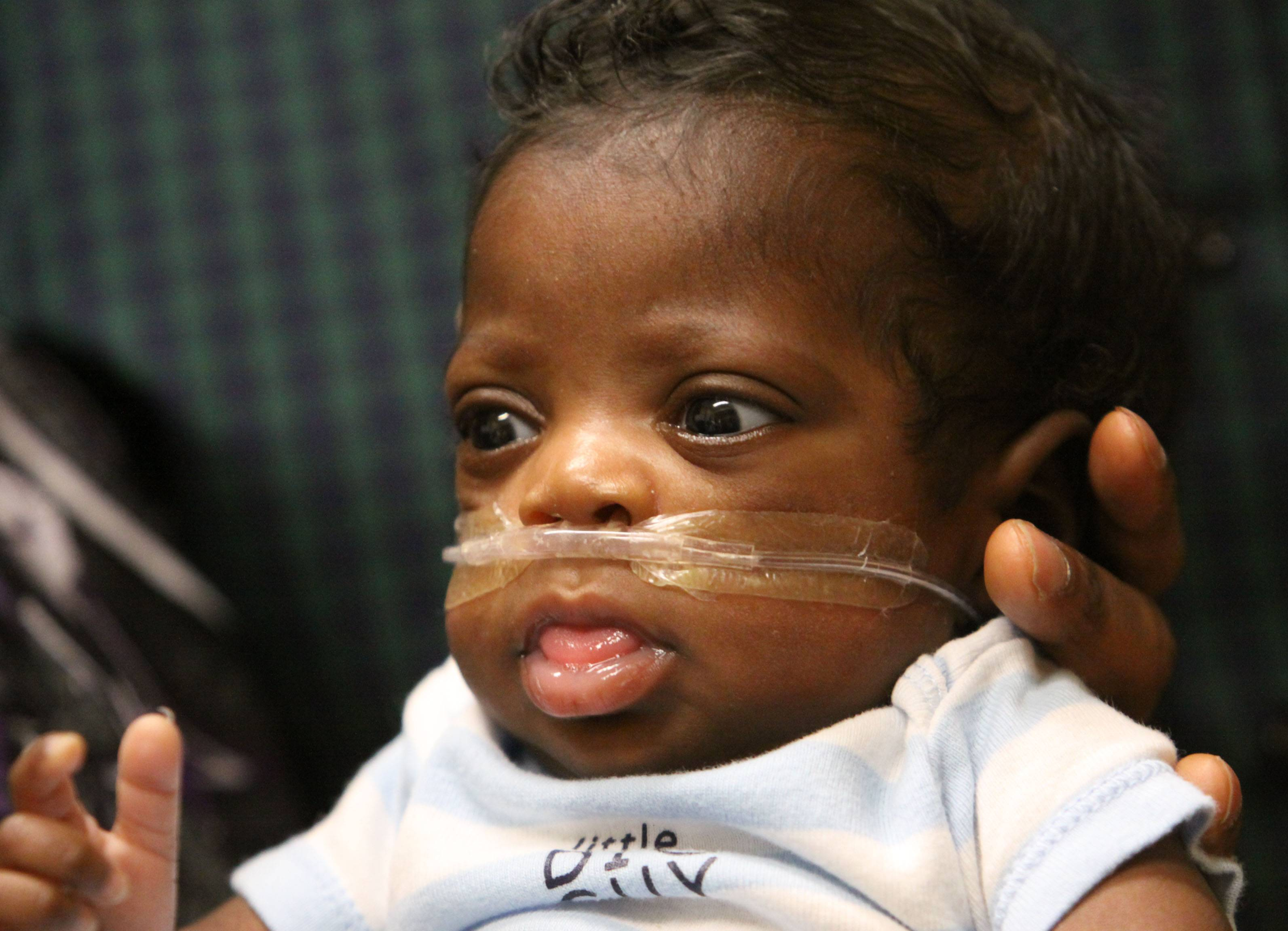 His parents say Michael Newson is doing well nearly four months after his premature birth.