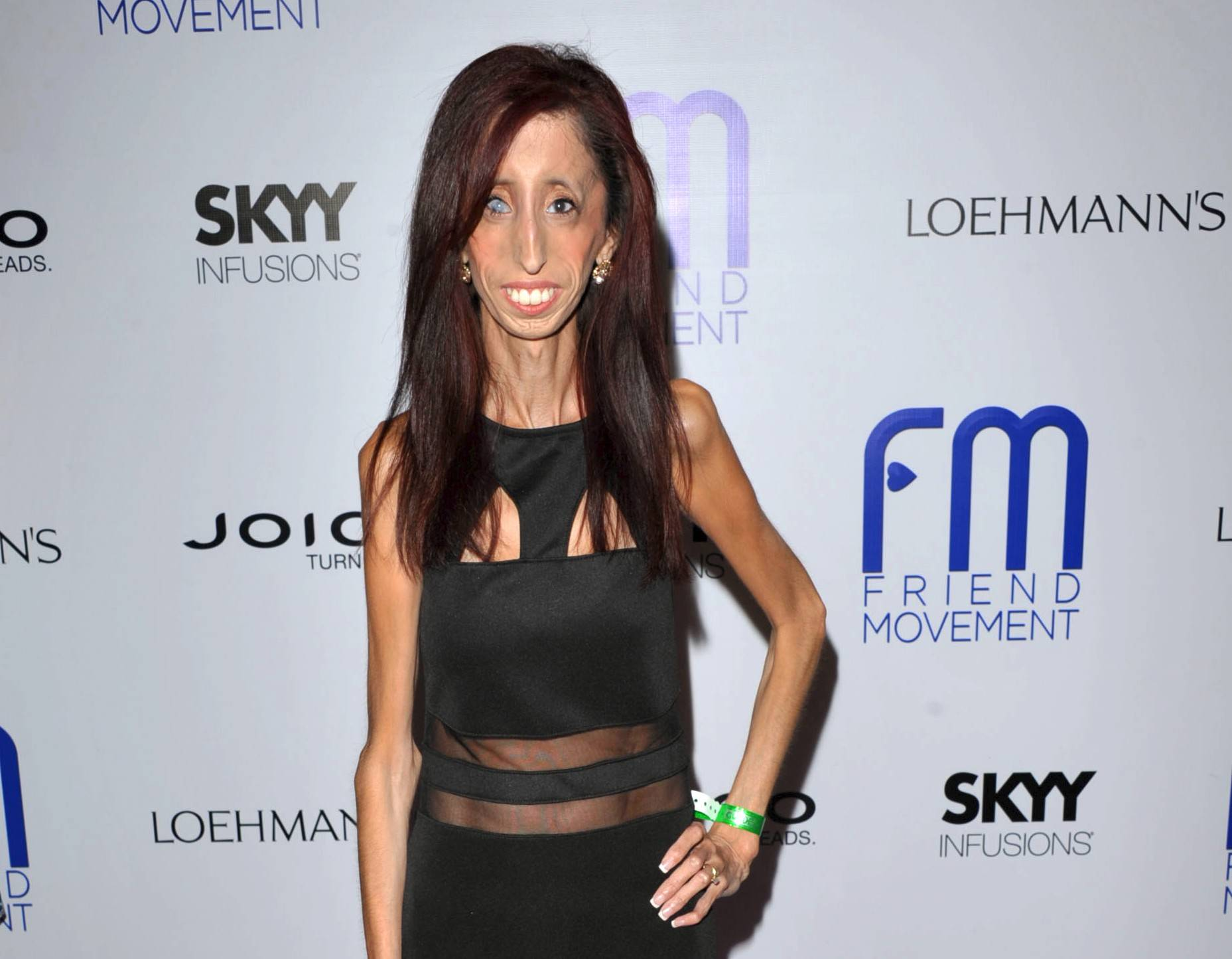 "Author and motivational speaker Lizzie Velasquez, who possesses a rare and unknown syndrome that prevents her from gaining weight, is raising funds on Kickstarter for an anti-bullying documentary titled ""The Lizzie Project."""