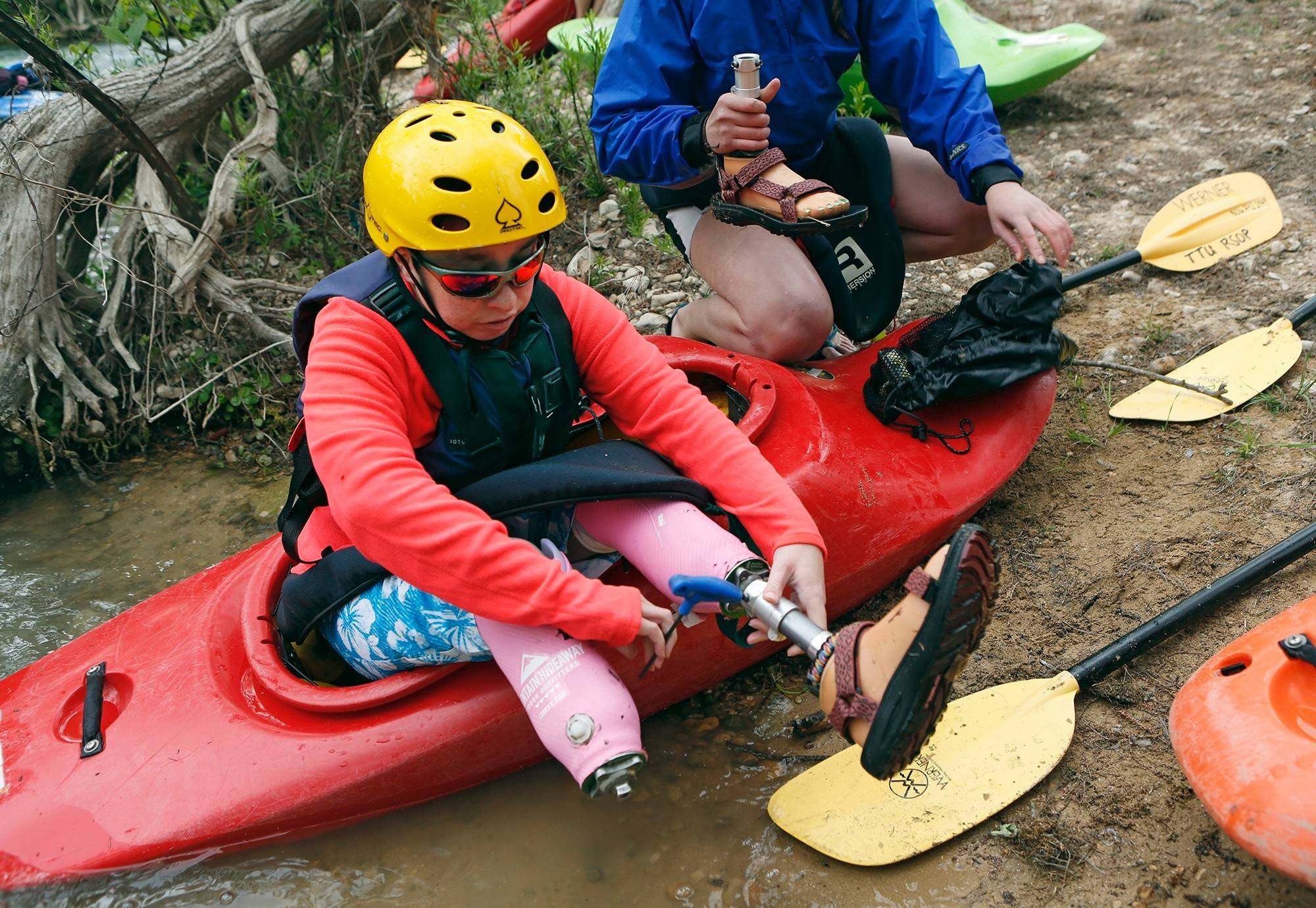Lacey Phipps takes off her prosthetic feet during a break from kayaking on the San Marcos River in Texas. Born with club feet, she had them removed after surgeries left her in constant pain.
