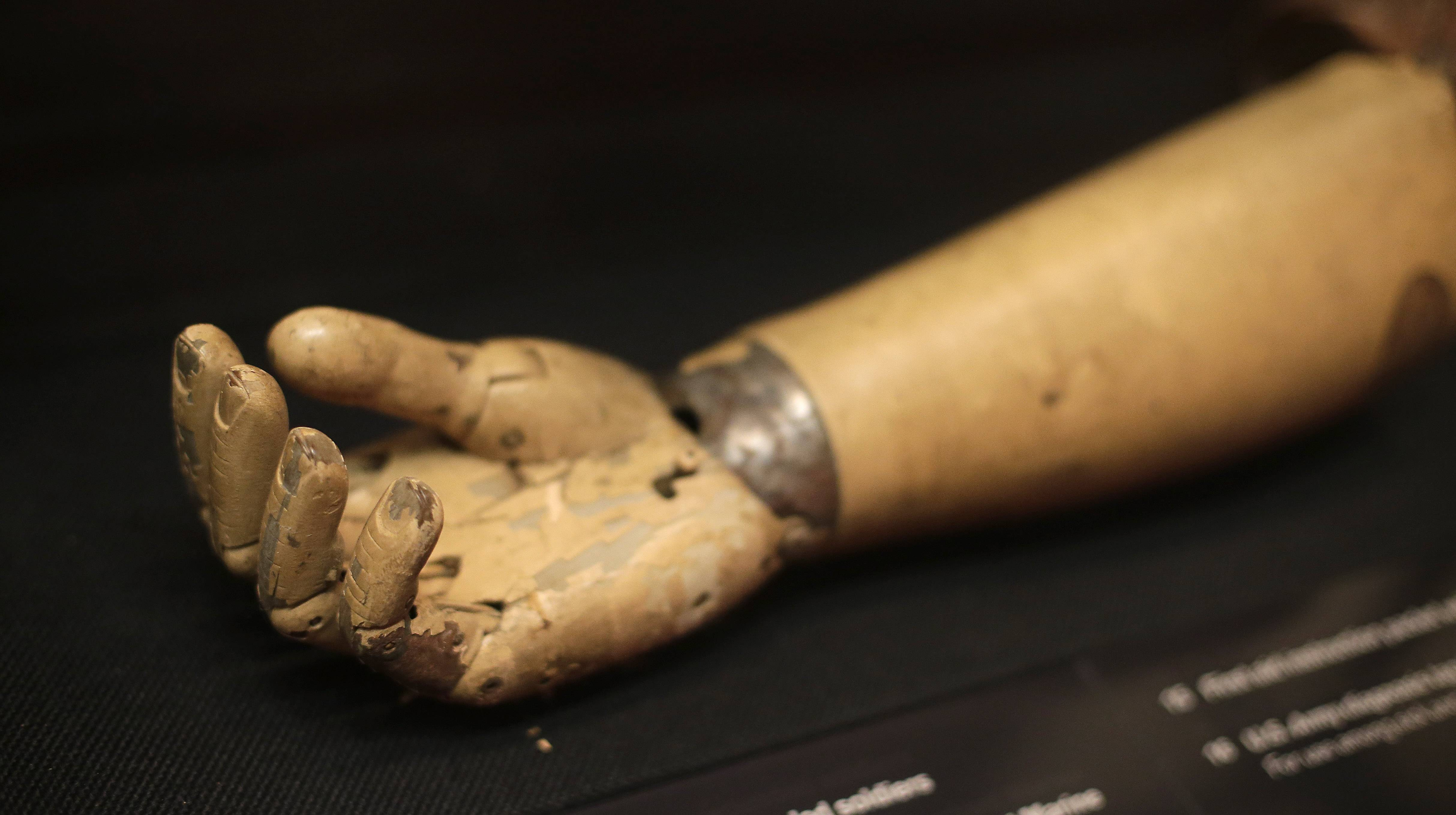 A prosthetic right arm issued to a wounded American soldier is on display at Kansas City's National World War I Museum.