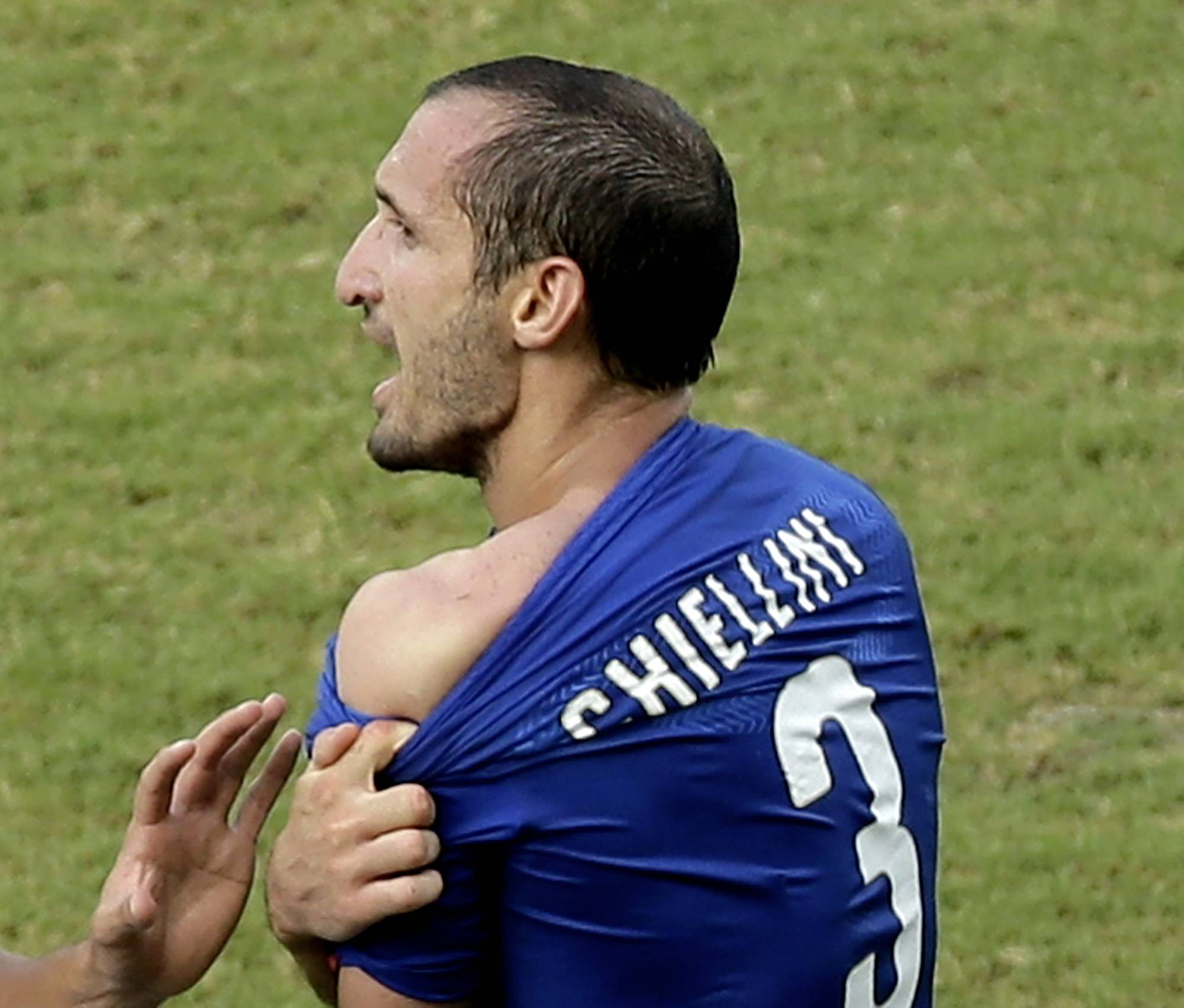 Italy's Giorgio Chiellini displays his shoulder showing apparent teeth marks after colliding with Uruguay's Luis Suarez Tuesday during a Group D World Cup match at the Arena das Dunas in Natal, Brazil.