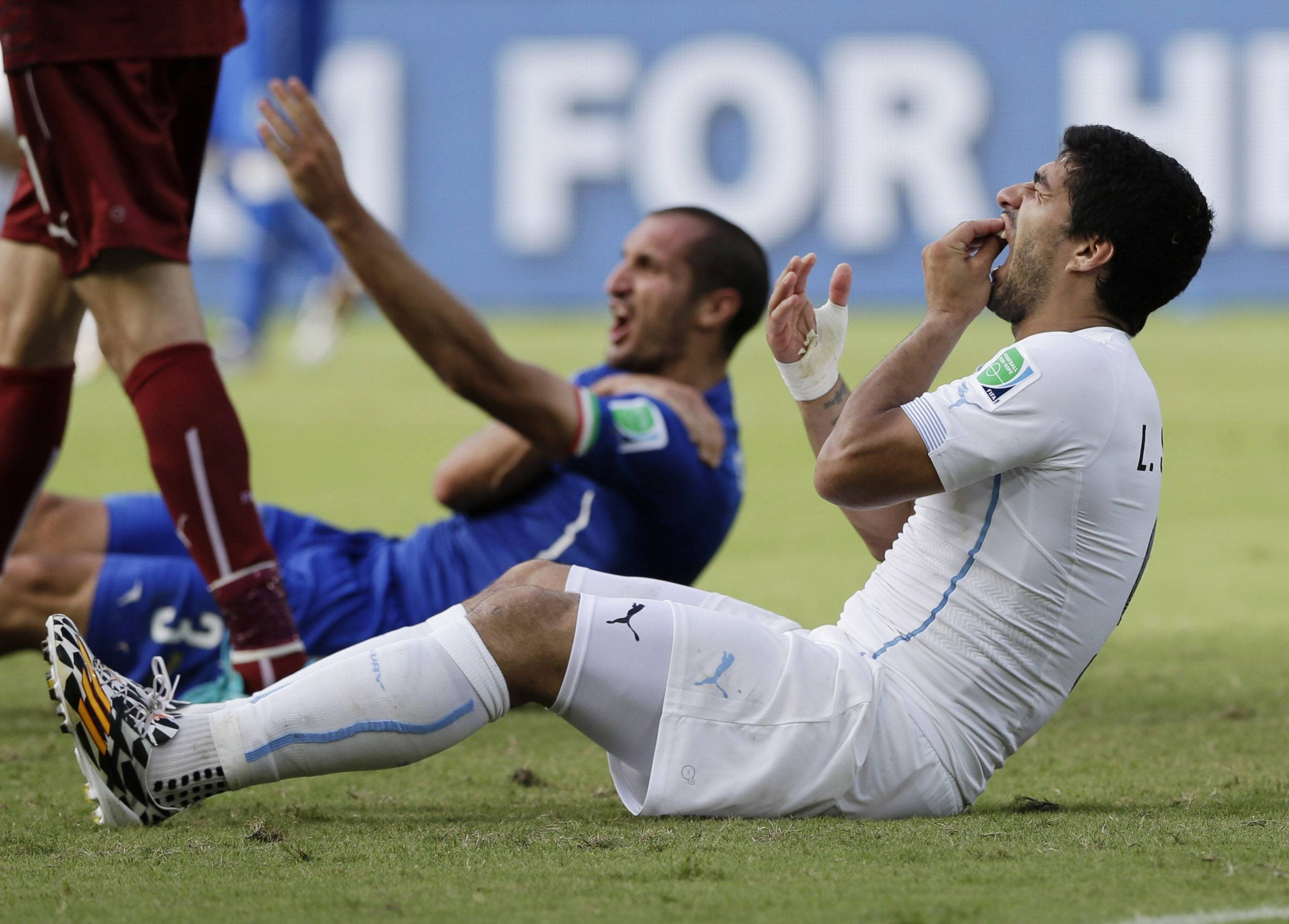 Uruguay's Luis Suarez holds his teeth after running into Italy's Giorgio Chiellini's shoulder Tuesday during a Group D World Cup soccer match at the Arena das Dunas in Natal, Brazil.