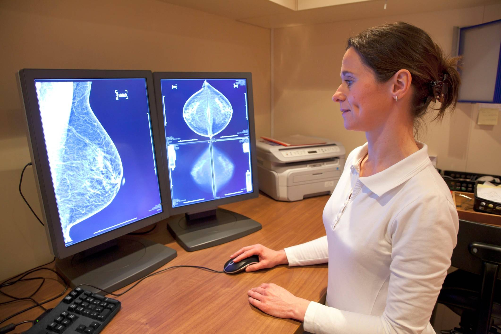 A new study shows that 3-D mammograms may be better at finding cancer than regular scans.