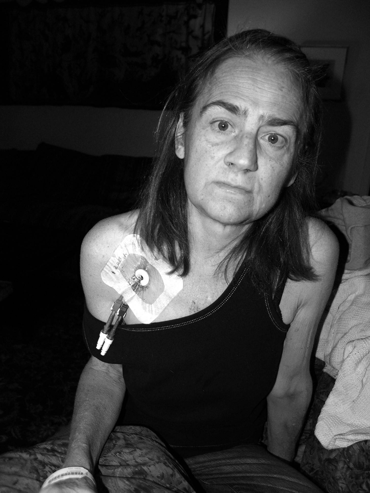 Kidney transplant recipient Irene Schneider shown in 2009 undergoing dialysis before her third transplant.
