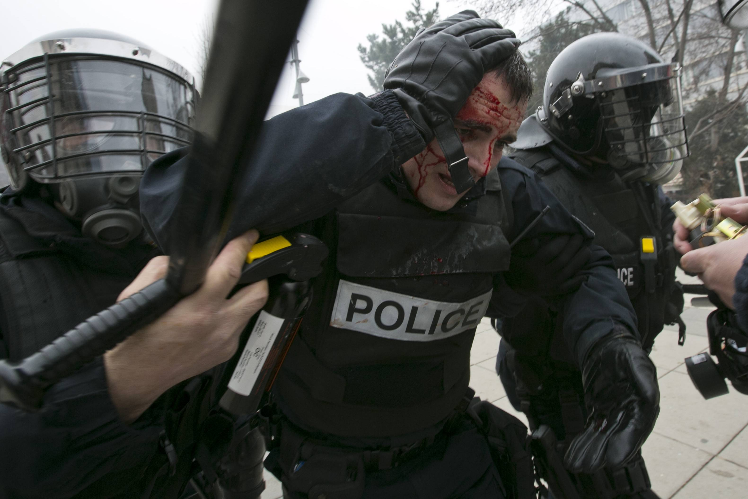 An injured police officer is helped by colleagues during a protest in Kosovo's capital Pristina, Tuesday, Jan. 27, 2015. Police in Kosovo fired volleys of tear gas at thousands of anti-government protesters demanding the resignation of a minister who had denied that war crimes were committed against ethnic Albanians during the 1998-99 war with Serbia.