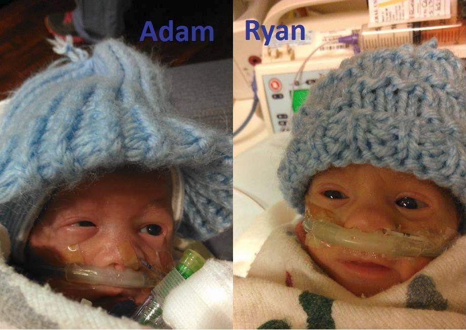 Twins Adam and Ryan Beckman were born at just 25 weeks and five days gestation. Their mom, Jennifer Beckman, is taking part in the Human Race to support the Little Giraffe Foundation's efforts on behalf of premature babies and their families.