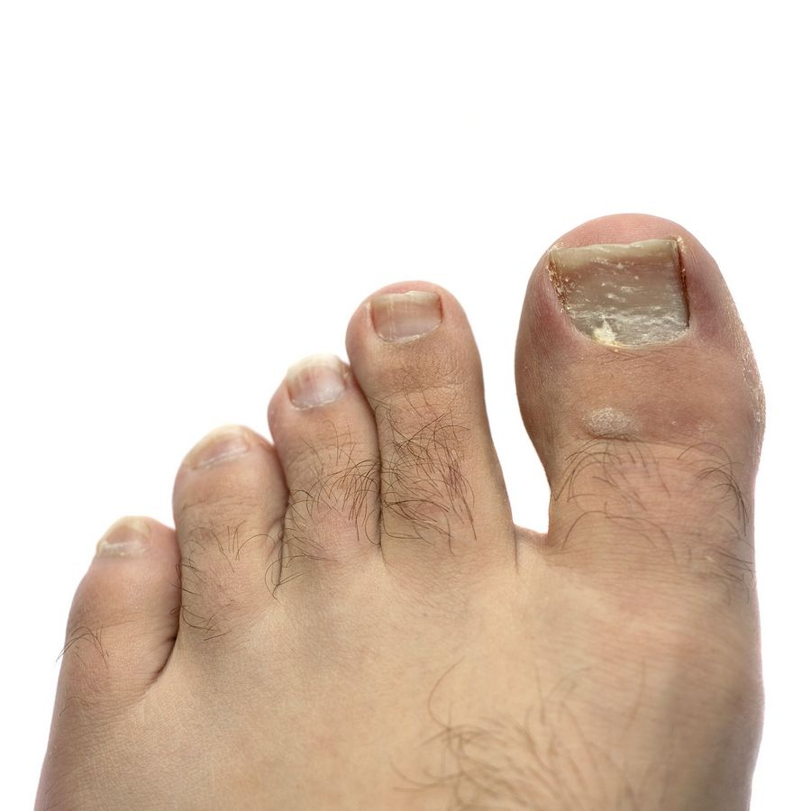 Toenail fungus has many remedies, but is hard to cure