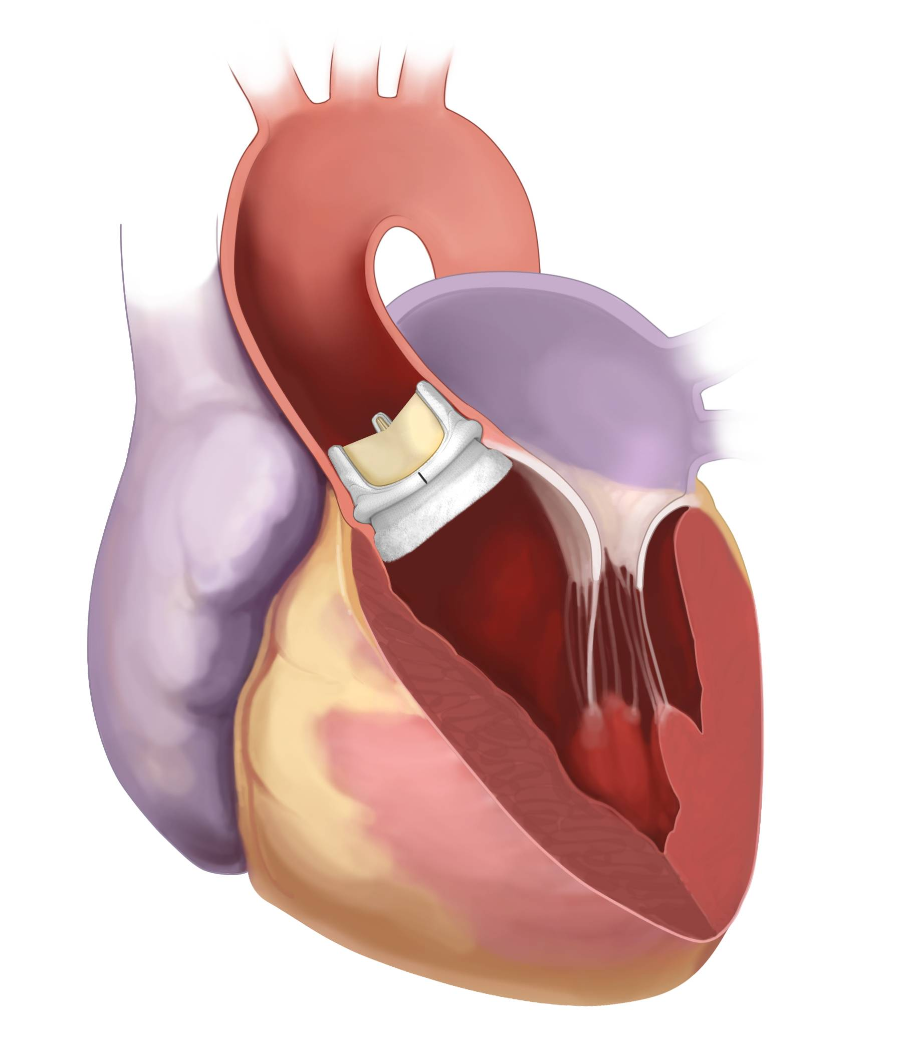 New aortic valve system at Central DuPage offers less invasive alternative to traditional open heart surgery