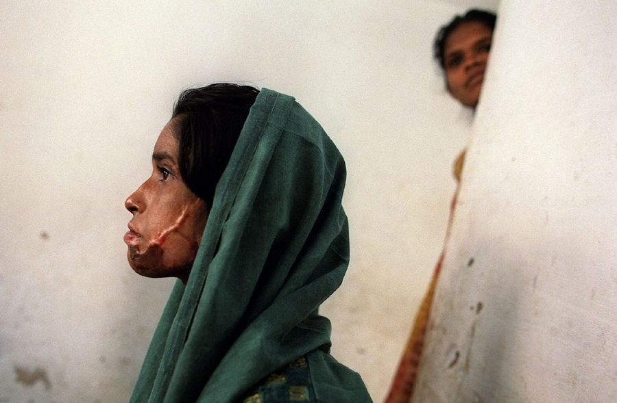 "A stunned Shajahan Sheikh, 18, listens as her mother asks ""Who will take her now?"" referring to the scars she wears across her face after she was burned during the 2002 riots in Ahmedabad.  She recovers from the riots in a Muslim resettlement area, known as Faizal Row House, outside of Ahmedabad."
