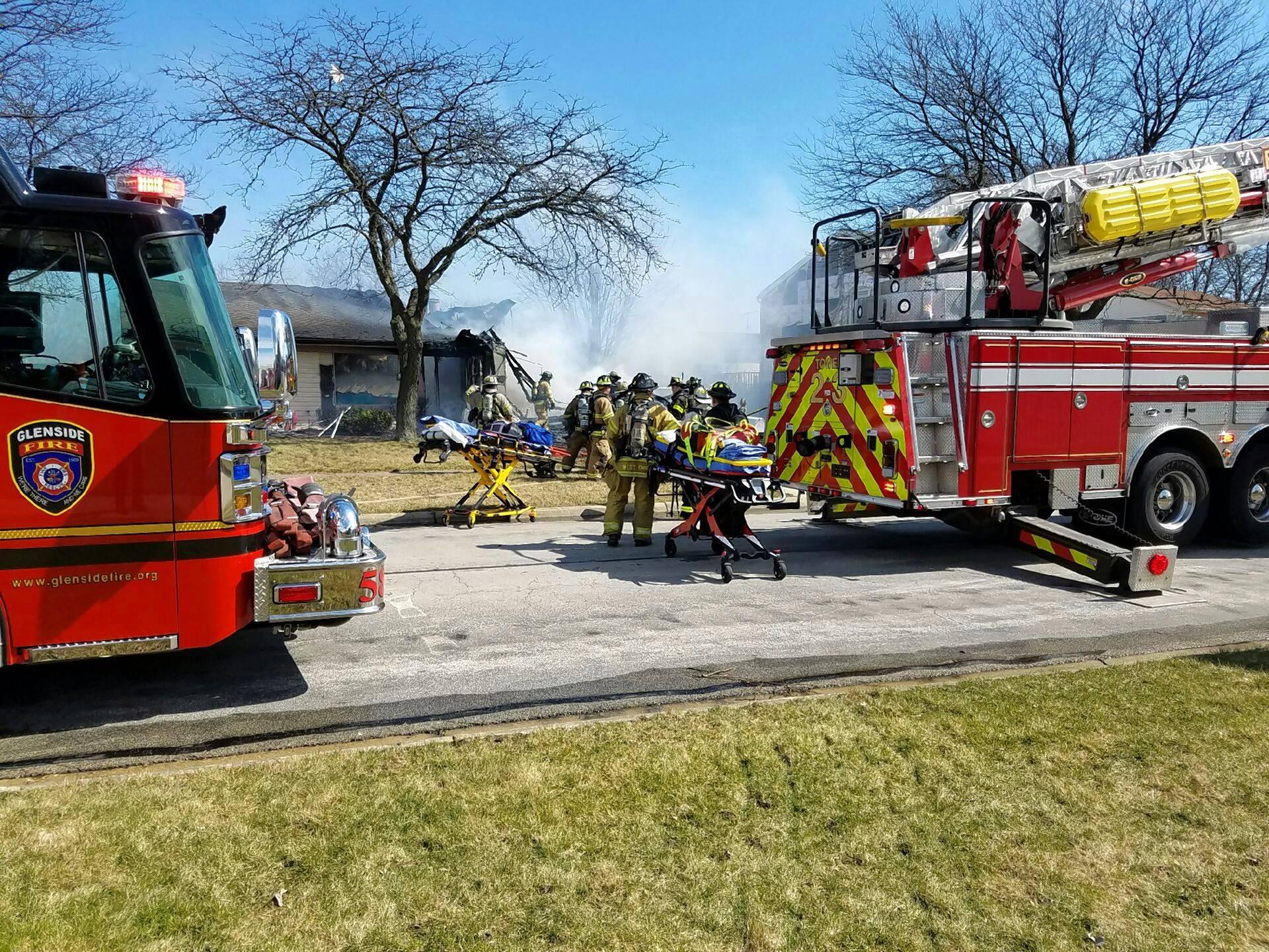 One hospitalized after Carol Stream house fire
