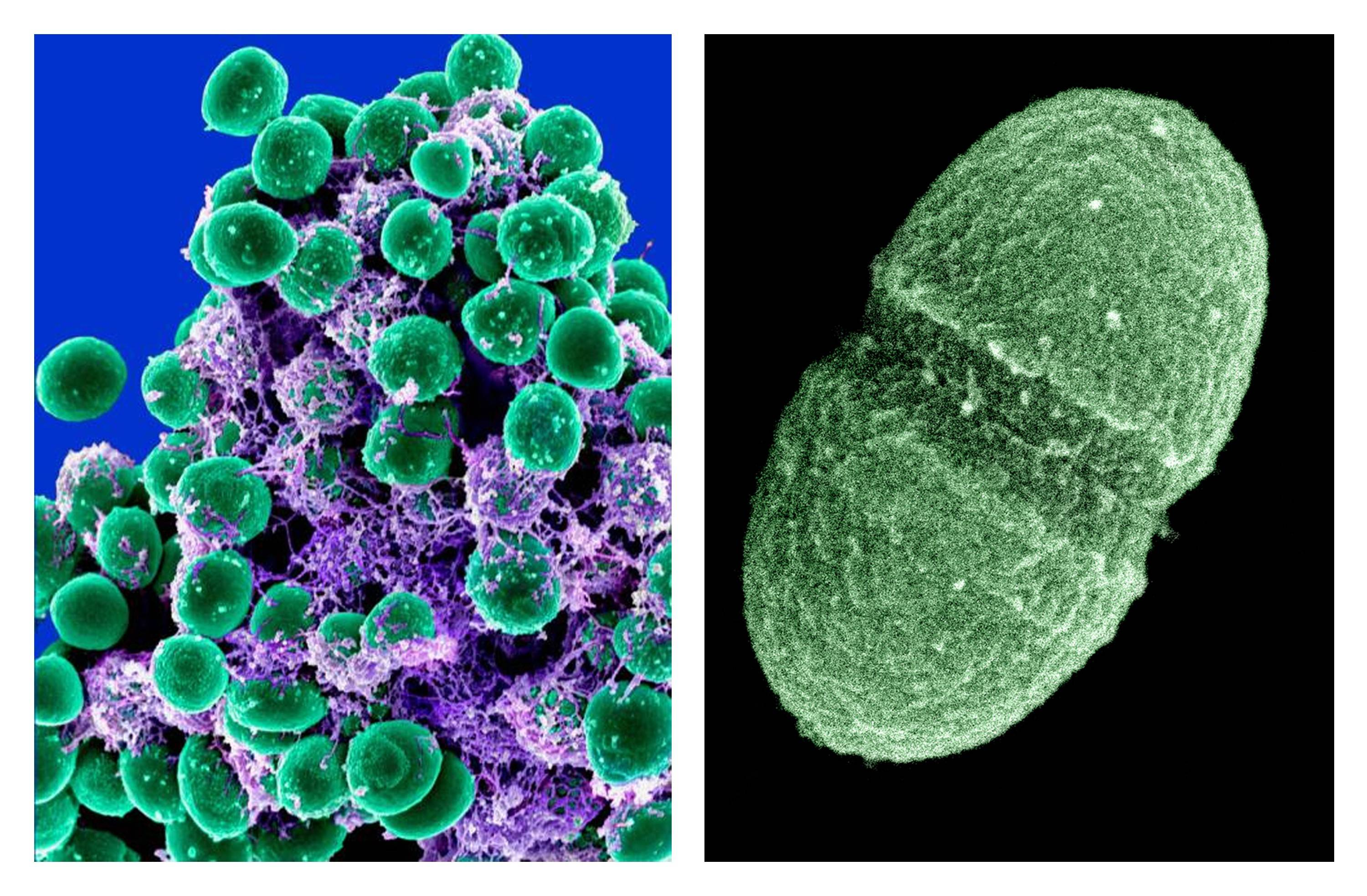 Scientists with the Human Microbiome Project map bacteria, fungi and other microbes, such as Staphylococcus epidermidis bacteria (green), left, and the bacterium, Enterococcus faecalis.