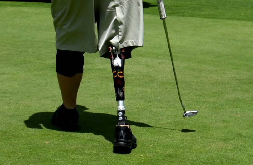 An amputee, Bruce Miller found a way to golf again