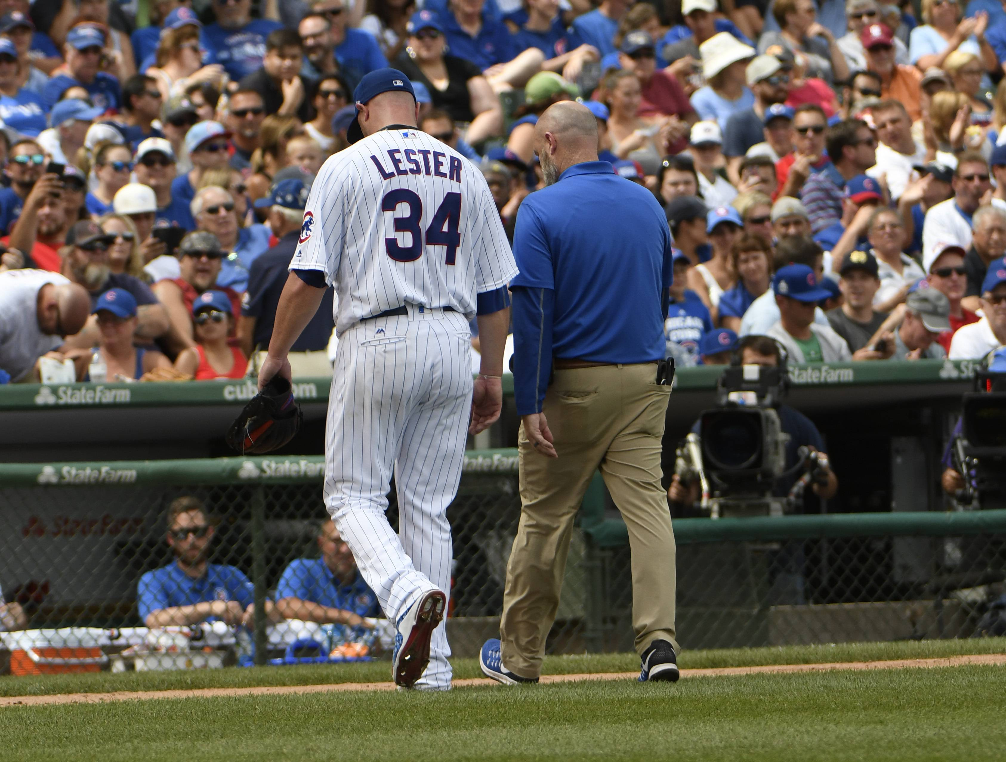 Chicago Cubs starting pitcher Jon Lester (34) leaves the game during the second inning of a baseball game against the Cincinnati Reds, Thursday, Aug. 17, 2017, in Chicago.