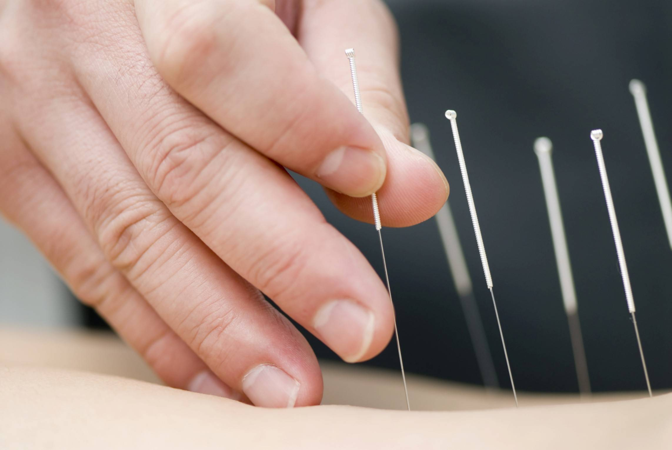 Dr. Patrick Massey recommends to his patients to try six sessions of acupuncture to see if it helps with allergies.