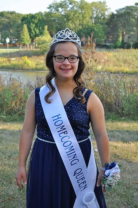 Buffalo Grove High School senior Amanda Ewald was crowned homecoming queen. Both she and homecoming king Brett Wilkinson have Down syndrome.