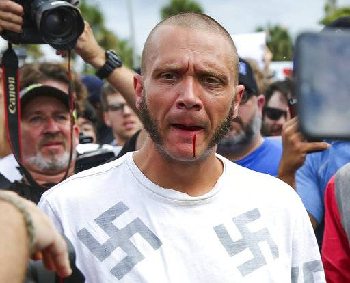 Blood runs from the lip of a man wearing a shirt with swastikas after he was punched by a protester outside a University of Florida auditorium where white nationalist Richard Spencer was preparing to speak, Thursday, Oct. 19, 2017 in Gainesville, Fla. (Will Vragovic/Tampa Bay Times via AP)