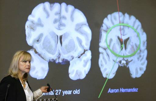 Ann McKee, director Boston University's center for research into the degenerative brain disease chronic traumatic encephalopathy, or CTE, addresses an audience on the school's campus Thursday, Nov. 9, 2017 about the study of NFL football player Aaron Hernandez's brain, projected on a screen, behind right, in Boston.  McKee says Hernandez suffered severe damage to parts of the brain that play an important role in memory, impulse control and behavior.  The cross section of the brain projected behind left is labeled a normal 27 year old.
