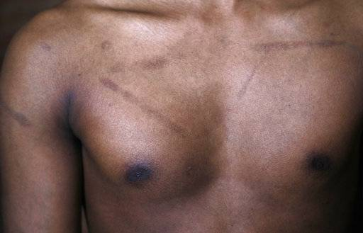 In this July 20, 2017, photo, a Sri Lankan man known as Witness #244 shows his scars during an interview in London. Most nights he wakes to nightmares and survives on a mixture of sleeping pills and anti-depressants. Raped, branded and beaten repeatedly, more than 50 ethnic Tamil men seeking political asylum in Europe have come forward to say they were abducted and tortured under Sri Lanka's current regime.
