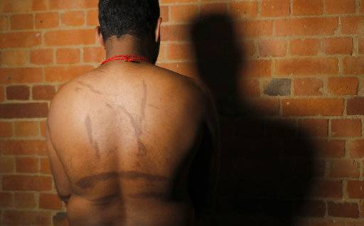 In this July 18, 2017, photo, a Sri Lankan man known as Witness #249 shows brand marks on his back during an interview in London. He said his captors used hot iron rods to make the marks meant to symbolize tiger stripes for the Tamil Tigers rebel group. He, like others, escaped Sri Lanka and was smuggled to Europe where he awaits a decision on political asylum.
