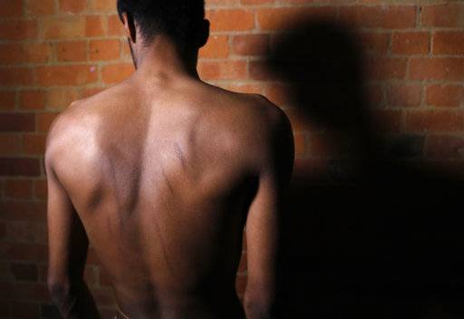 In this July 18, 2017, photo, a Sri Lankan man known as Witness #202 shows branding marks on his back during an interview in London. Memories of his 2016 rape and torture have compelled him to speak out. Like many of the other tortured men, he was accused of trying to revive the Tamil Tigers rebel group.