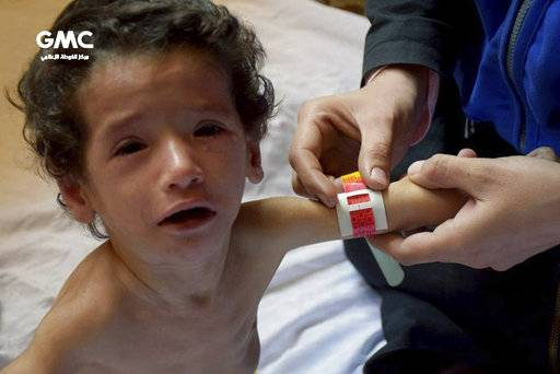 This photo provided on Sunday, Nov. 12, 2017 by the Syrian anti-government activist group Ghouta Media Center, which has been authenticated based on its contents and other AP reporting, shows a medical worker measuring a malnourished child's forearm in Ghouta, near Damascus, Syria. The United Nations Children agency says the worst malnutrition rate since the start of the Syria conflict nearly seven years ago has been recorded in a rebel-held suburb of Damascus, besieged since mid-2013. (Ghouta Media Center via AP)