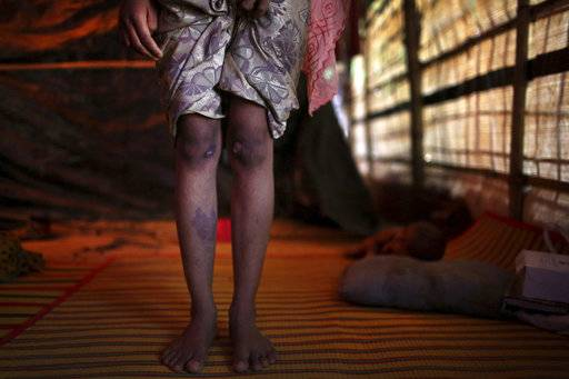 In this Sunday, Nov. 19, 2017, photo, R, 13, shows off the scars on her knees and right shin from injuries obtained when members of Myanmar's armed forces dragged her out of her house before gang raping her, during an interview with The Associated Press in Kutupalong refugee camp in Bangladesh. The Associated Press has found that the rape of Rohingya women by Myanmar's security forces has been sweeping and methodical. The AP interviewed 29 women and girls who say they were raped by Myanmar's armed forces, and found distinct patterns in their accounts, their assailants' uniforms and the details of the rapes themselves. The most common attack involved groups of soldiers storming into a house, beating any children inside and then beating and gang raping the women.