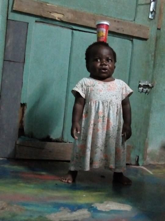"Balancing a cup on her head back home in her native Côte d'Ivoire, 2-year-old Dominique ""couldn't be doing better,"" says Dr. John Ruge, a pediatric neurosurgeon who headed up the team that performed a life-altering surgery on the girl last year at Advocate Children's Hospital in Park Ridge."