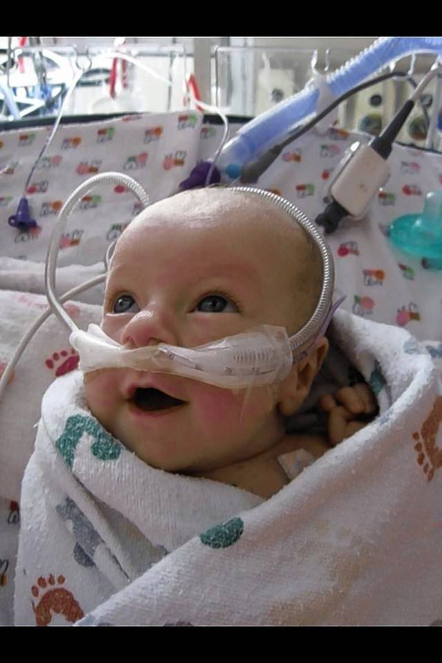 Lucy Shannon was born four years ago with hypoplastic left heart syndrome.